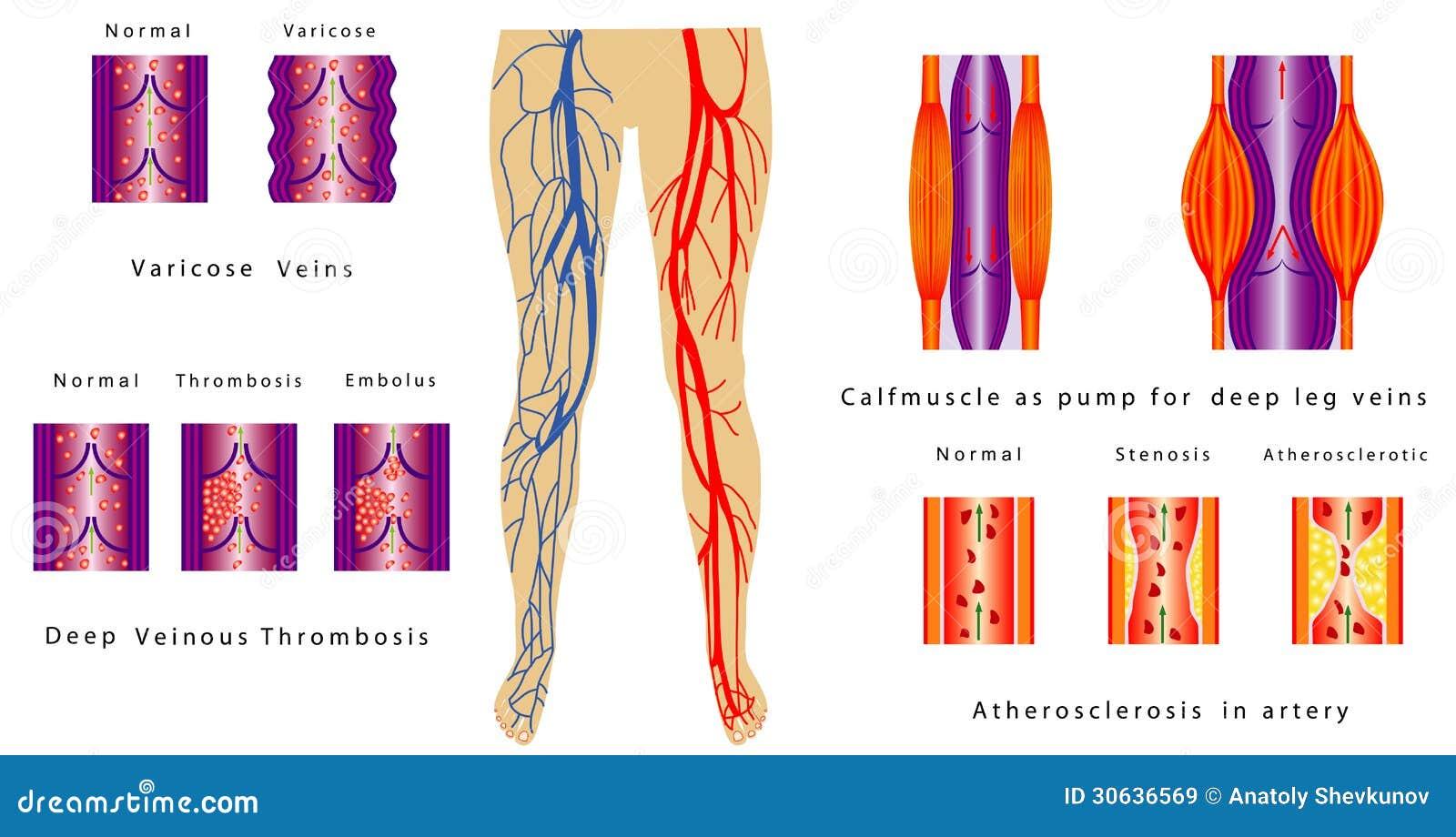 Vascular System Legs stock vector. Illustration of macro - 30636569