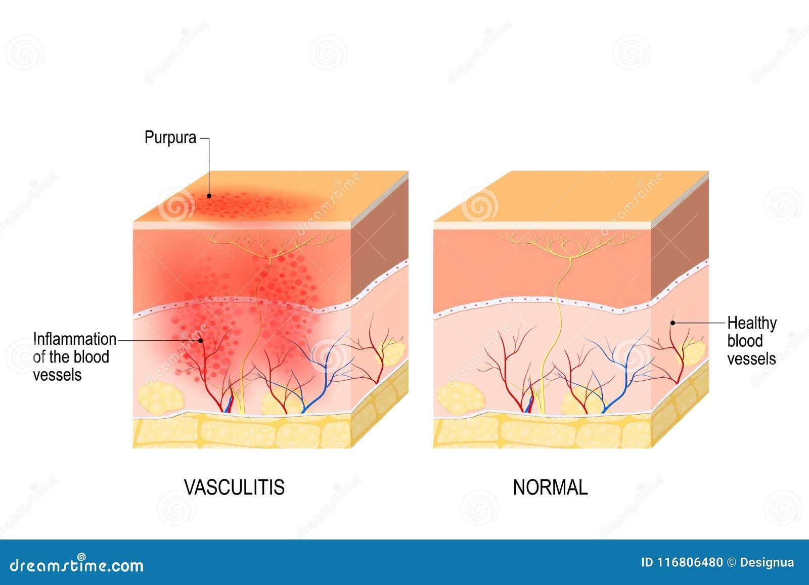 Vasculite Sezione trasversale della pelle umana con vasculite