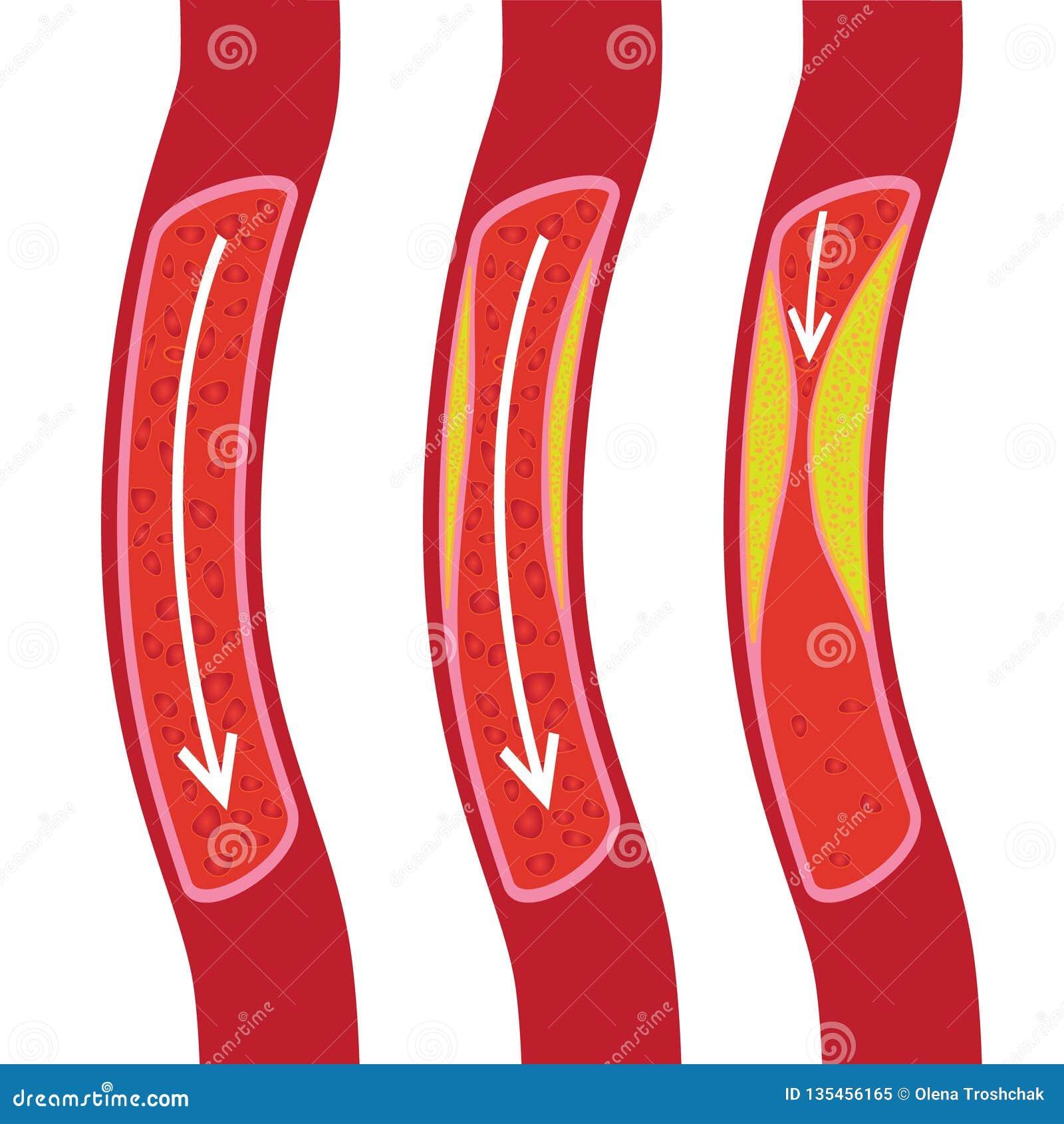 Vaso sanguíneo saudável, em parte obstruído e ilustração obstruída do vaso sanguíneo