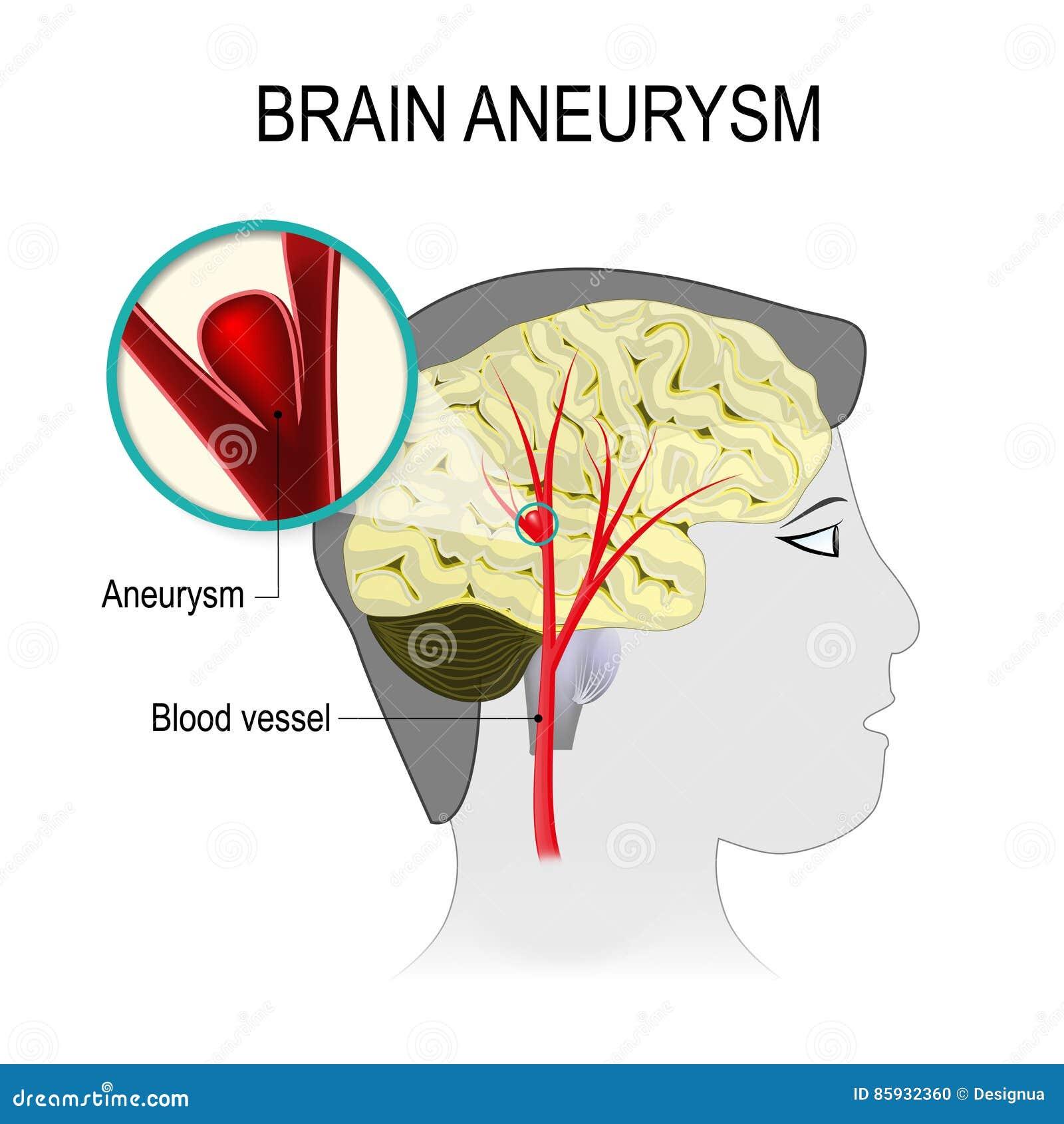 Vasos Sanguíneos En El Cerebro Con Aneurysm Ilustración del Vector ...