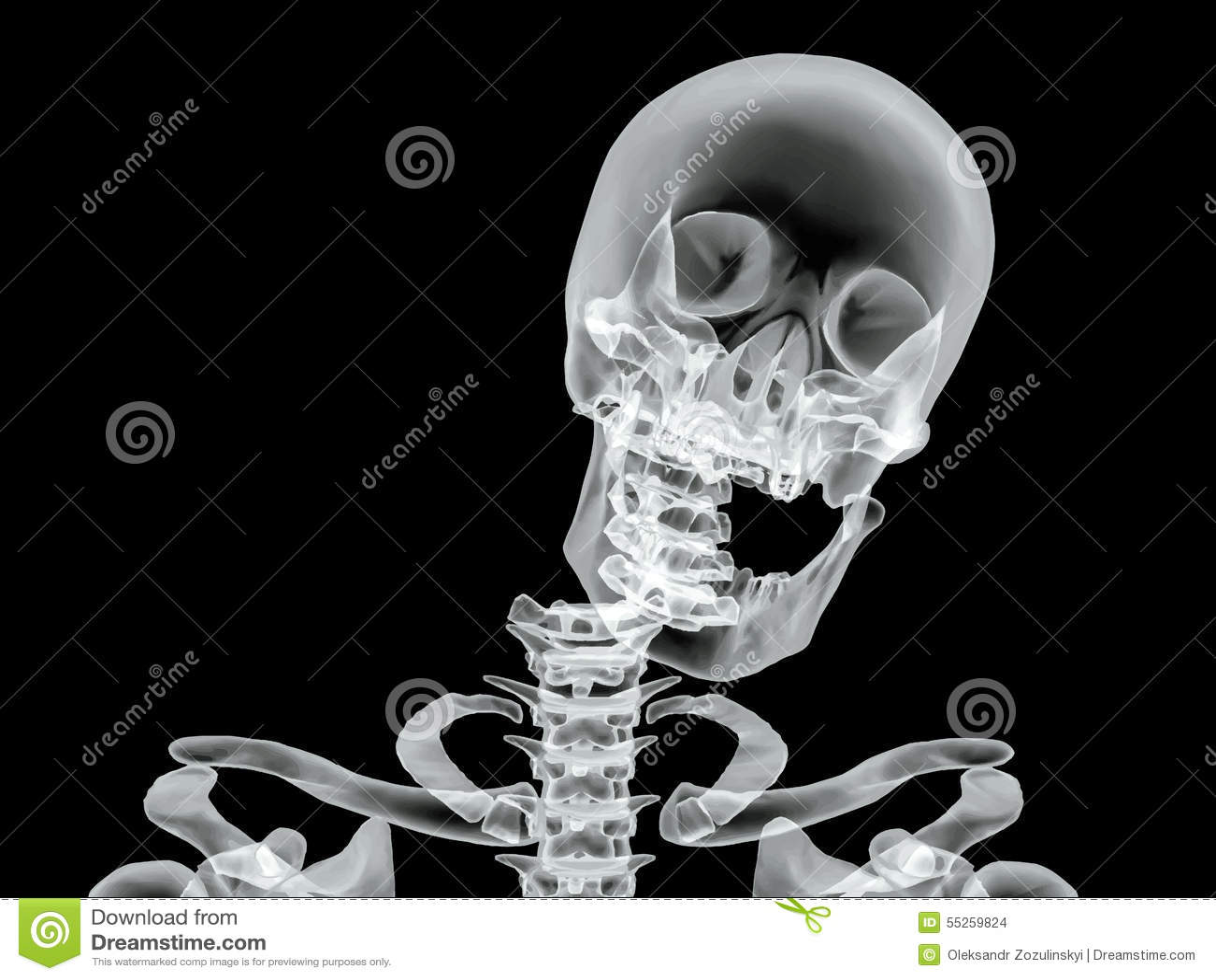 Vector Broken Bone X-ray Image Stock Vector - Image: 55259824