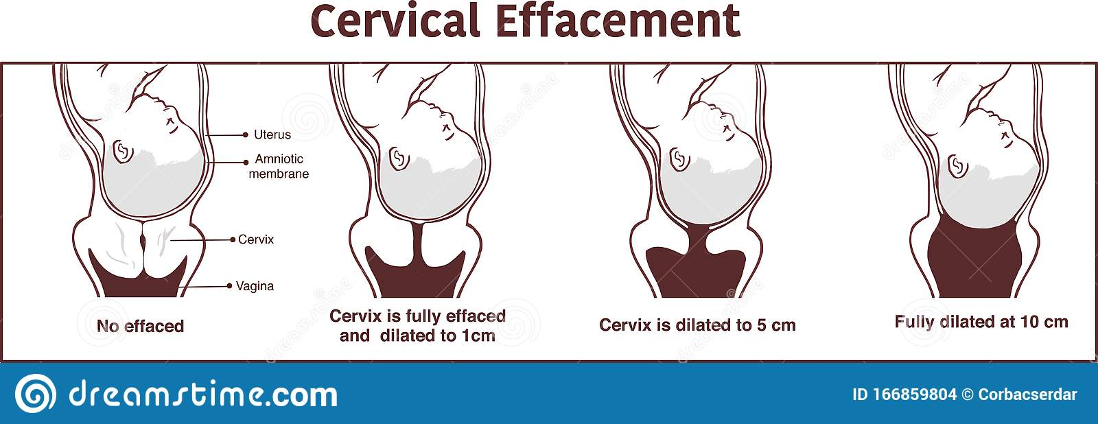Vector - Cervical Effacement And Dilatation During Labor Stock Vector