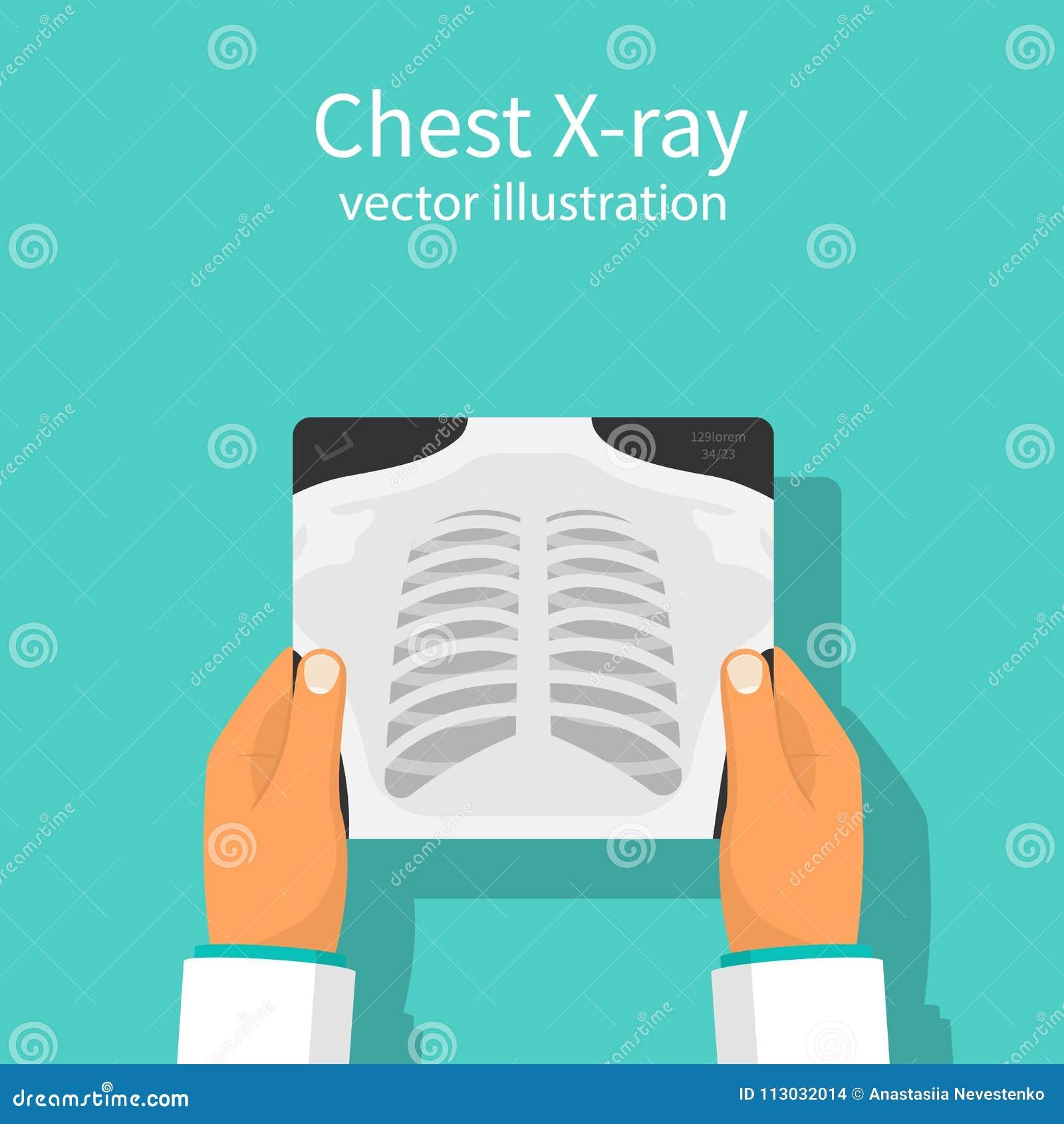 Vector de la radiografía del pecho