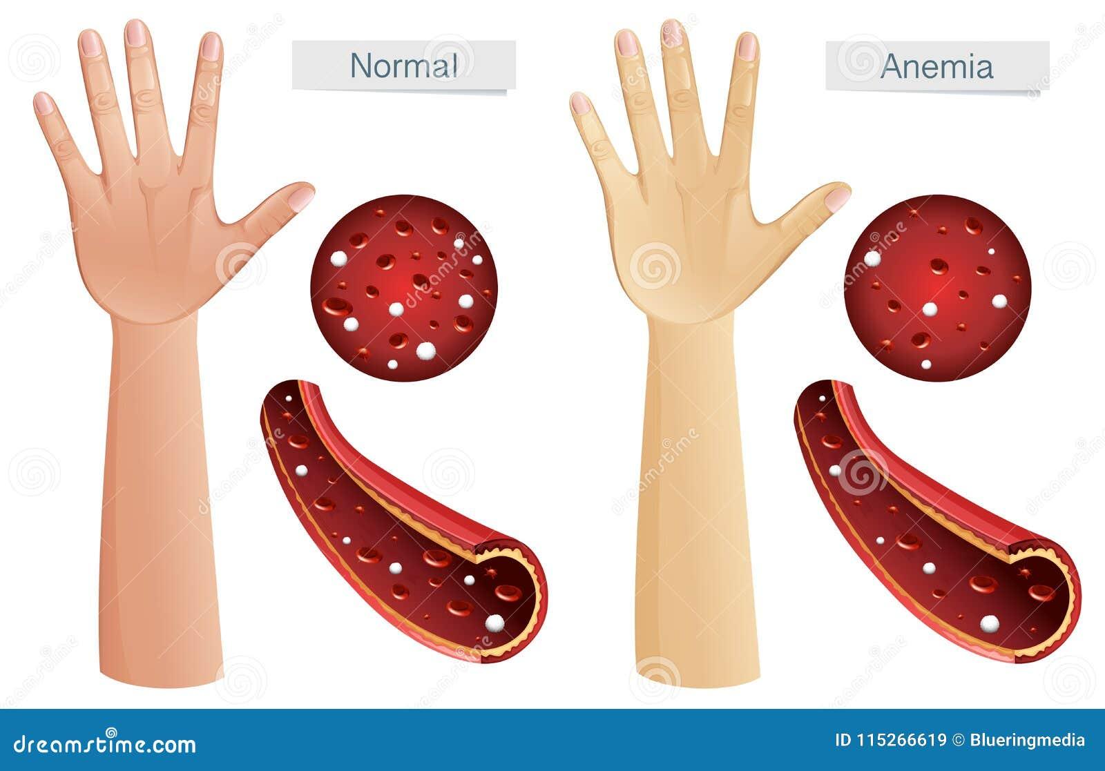 Vector Humano De La Anatomía De La Anemia Ilustración del Vector ...