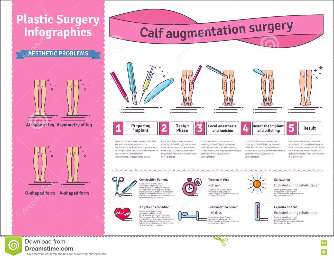 Vector Illustrated Set With Calf Augmentation Surgery Stock