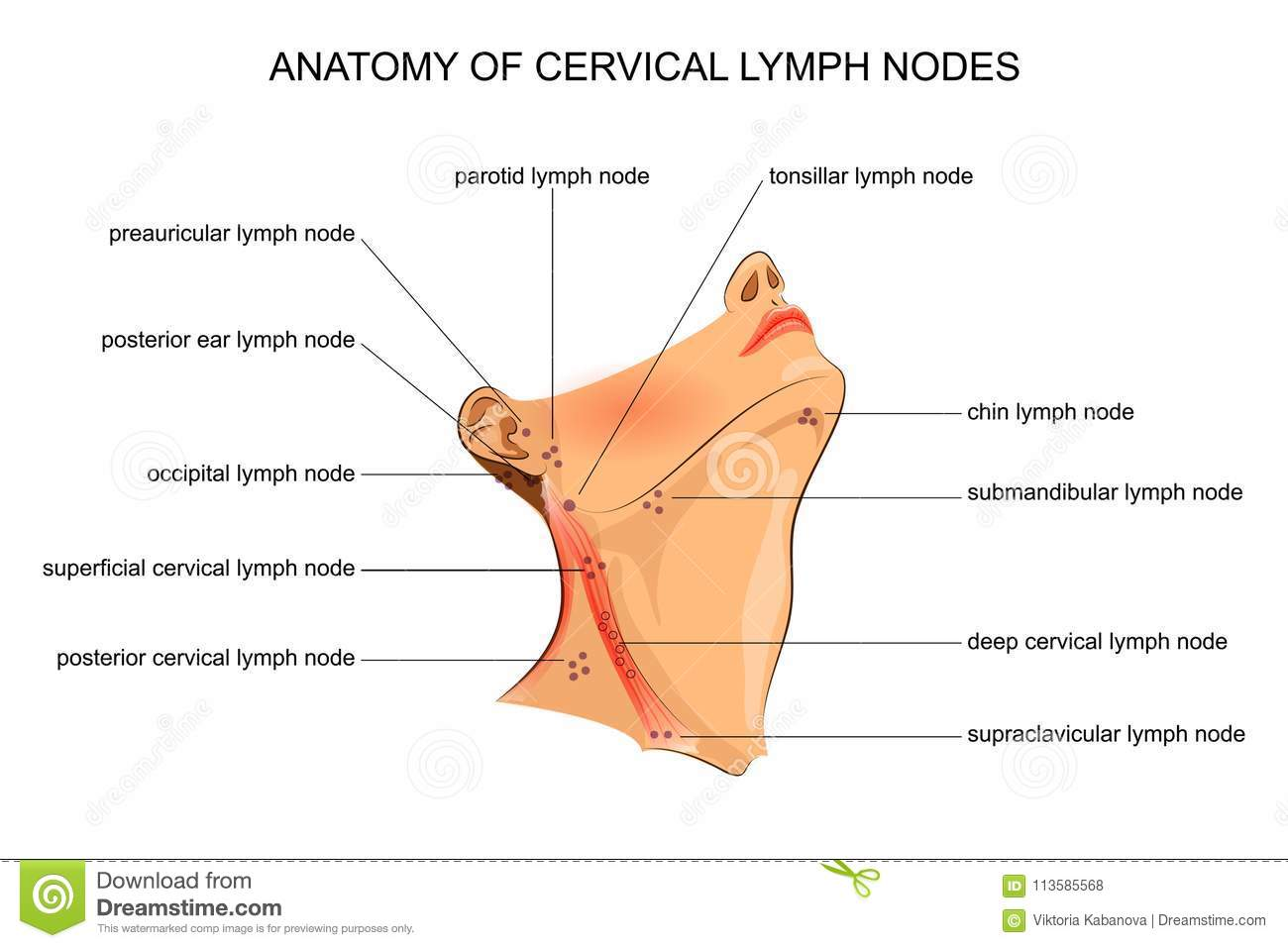 Anatomy Of Cervical Lymph Nodes Stock Vector - Illustration of node ...