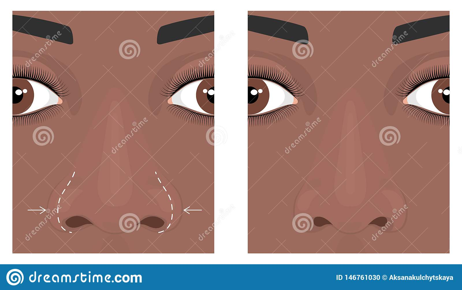Face Front_Wide Nose Surgery 2 Stock Vector - Illustration of