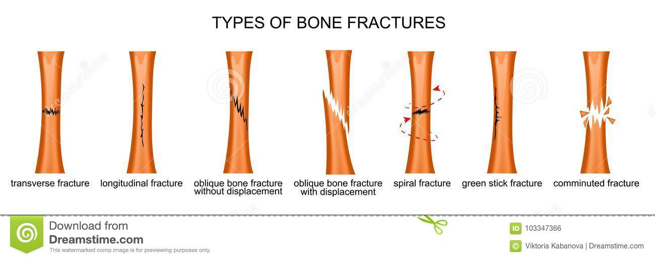 Types Of Bone Fractures Stock Vector Illustration Of Anguish