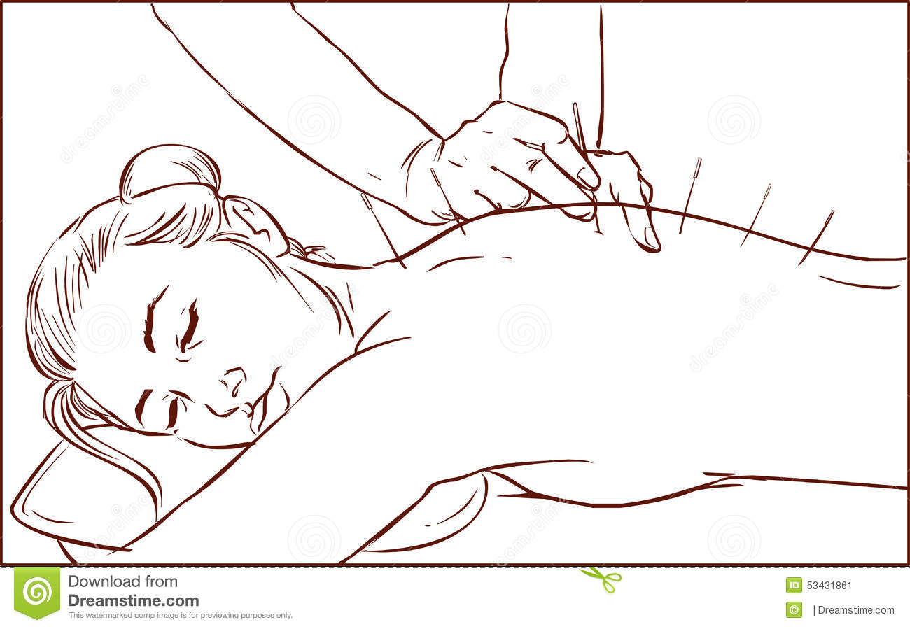 A vector illustration of a woman receiving acupuncture - Clipart illustration ...