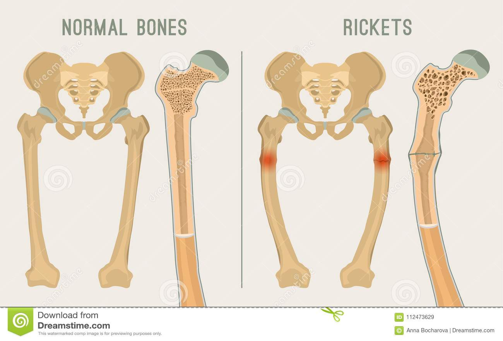 Rickets Cartoons, Illustrations & Vector Stock Images