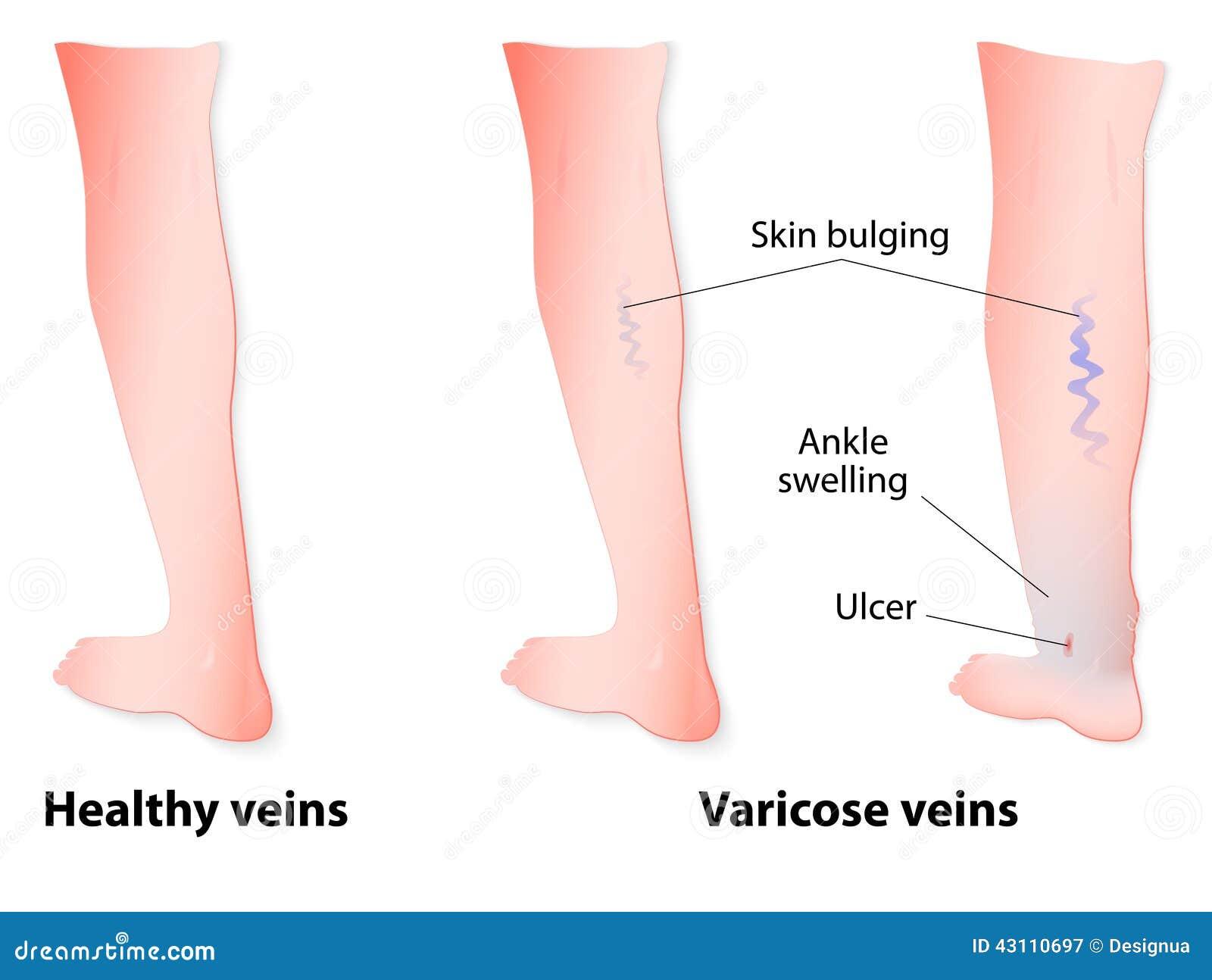 Veias varicosas
