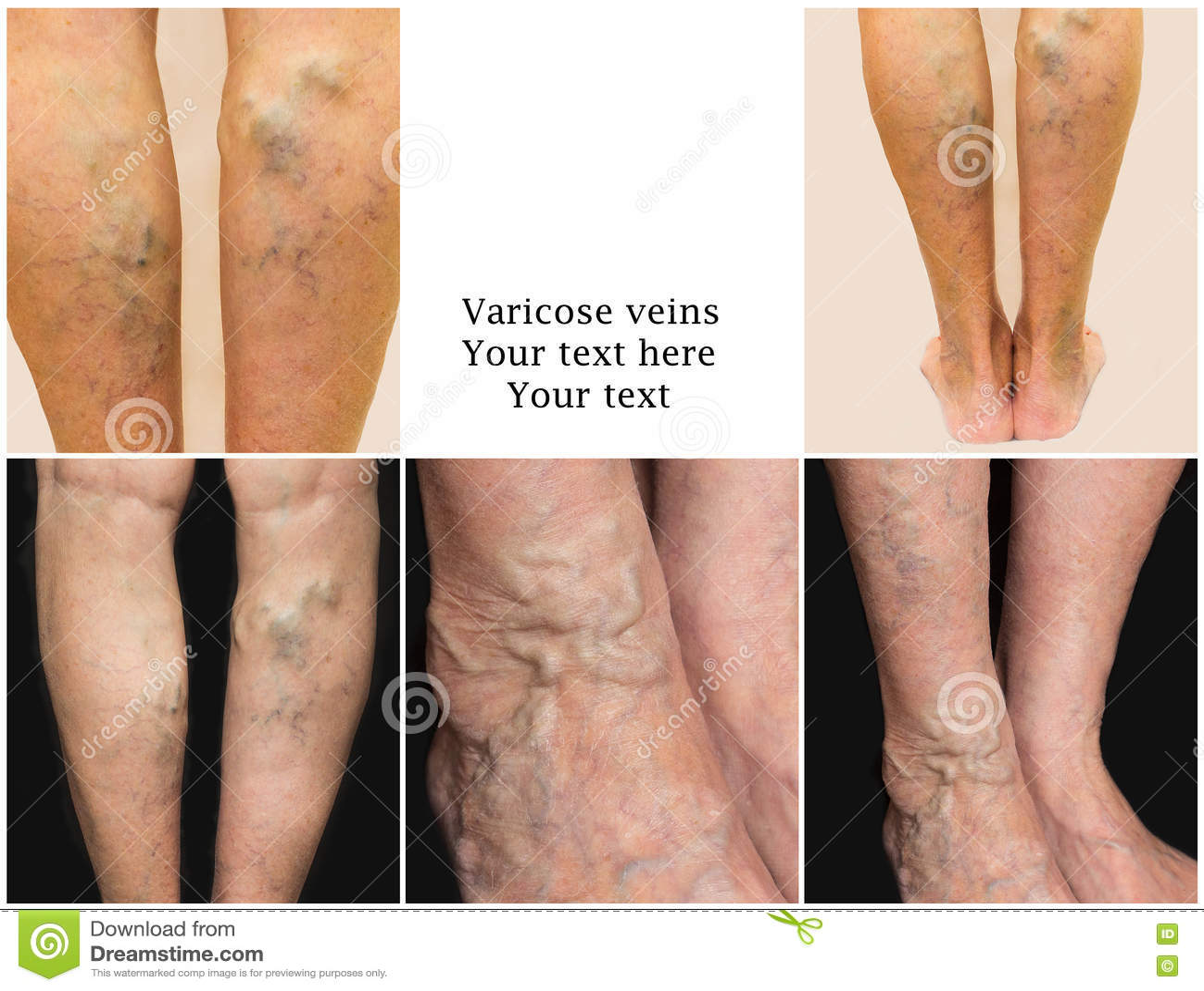 colagen de la varicoseza exerciții de mână în varicoză