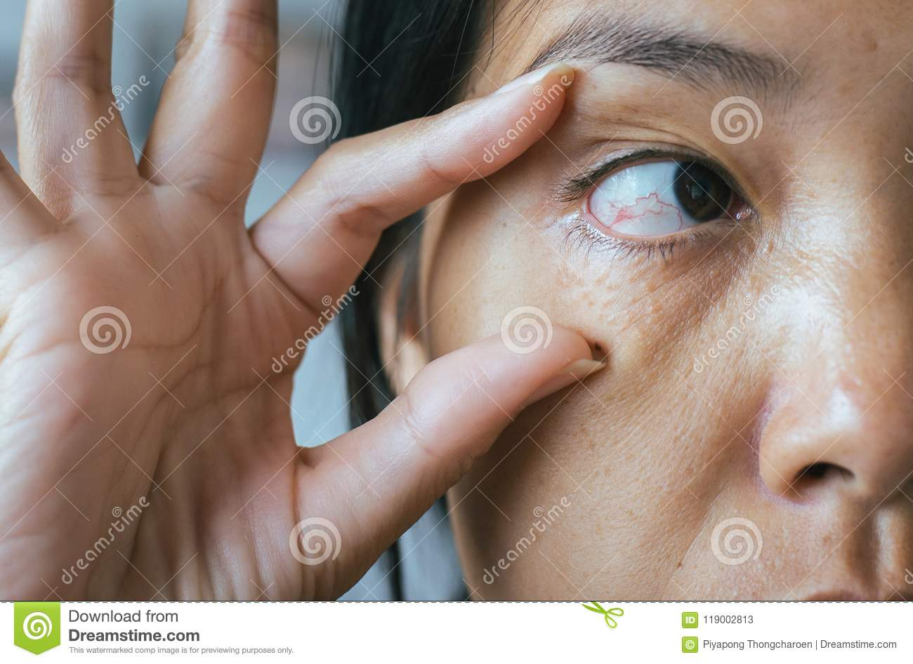 Veins On Red Eye Asian Woman,Eyelid Layer,Causes The Use Of Eyes And