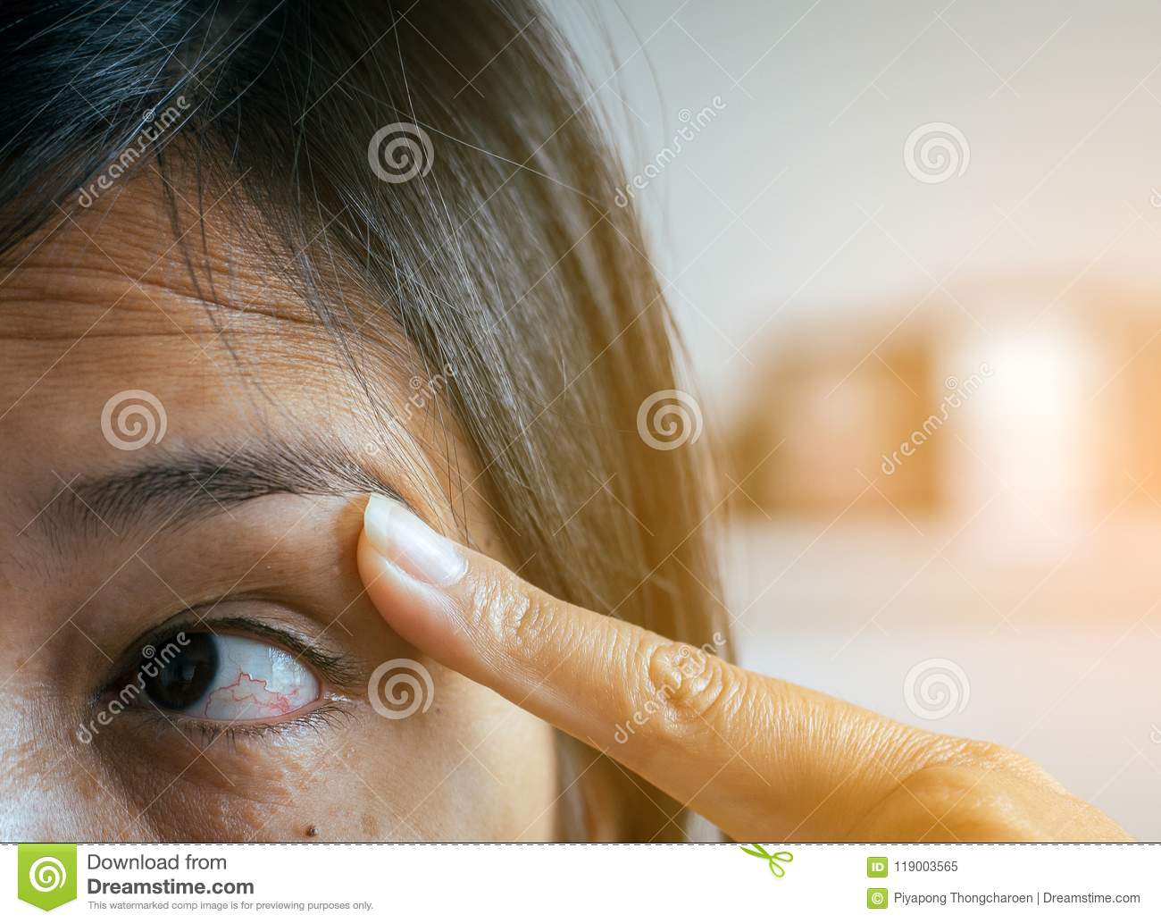 Veins On Red Eye Woman,Eyelid Layer,Causes The Use Of Eyes And Not