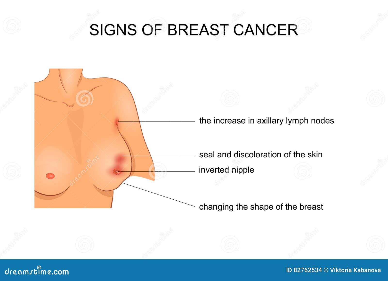 Vektorillustration für medizinische Veröffentlichungen Krebschirurgie