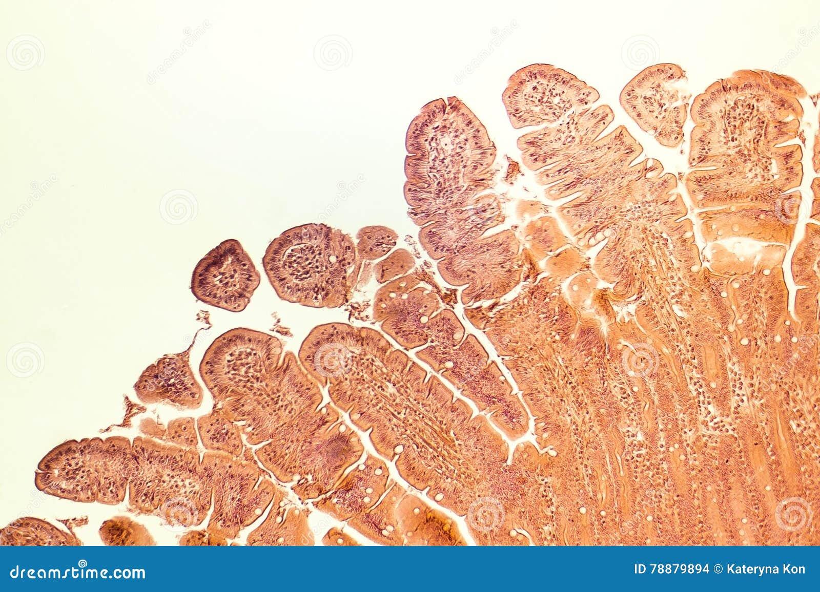 Vellosidades del intestino delgado