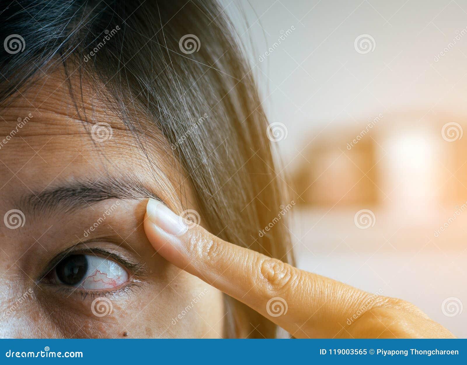 venas rojas en tus ojos