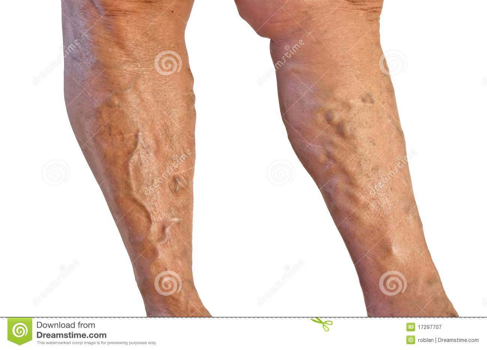 Venotonik a trombosi di vene profonde