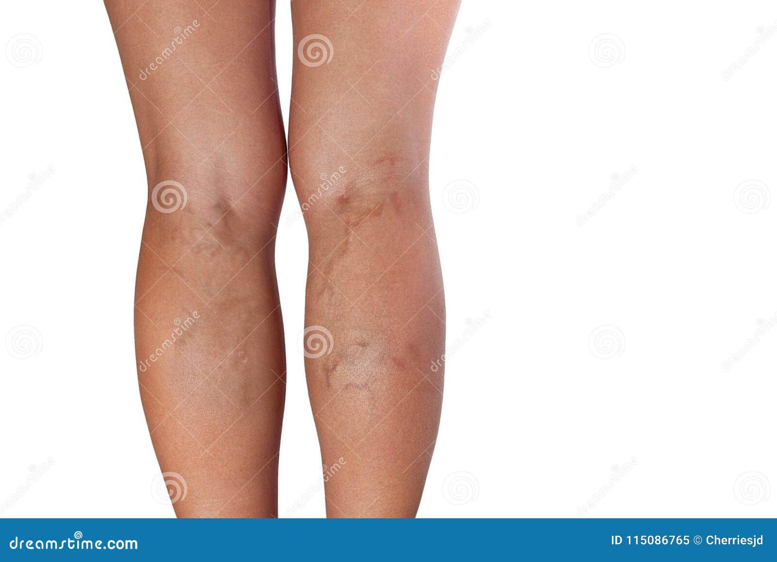 vene delle gambe doloranti