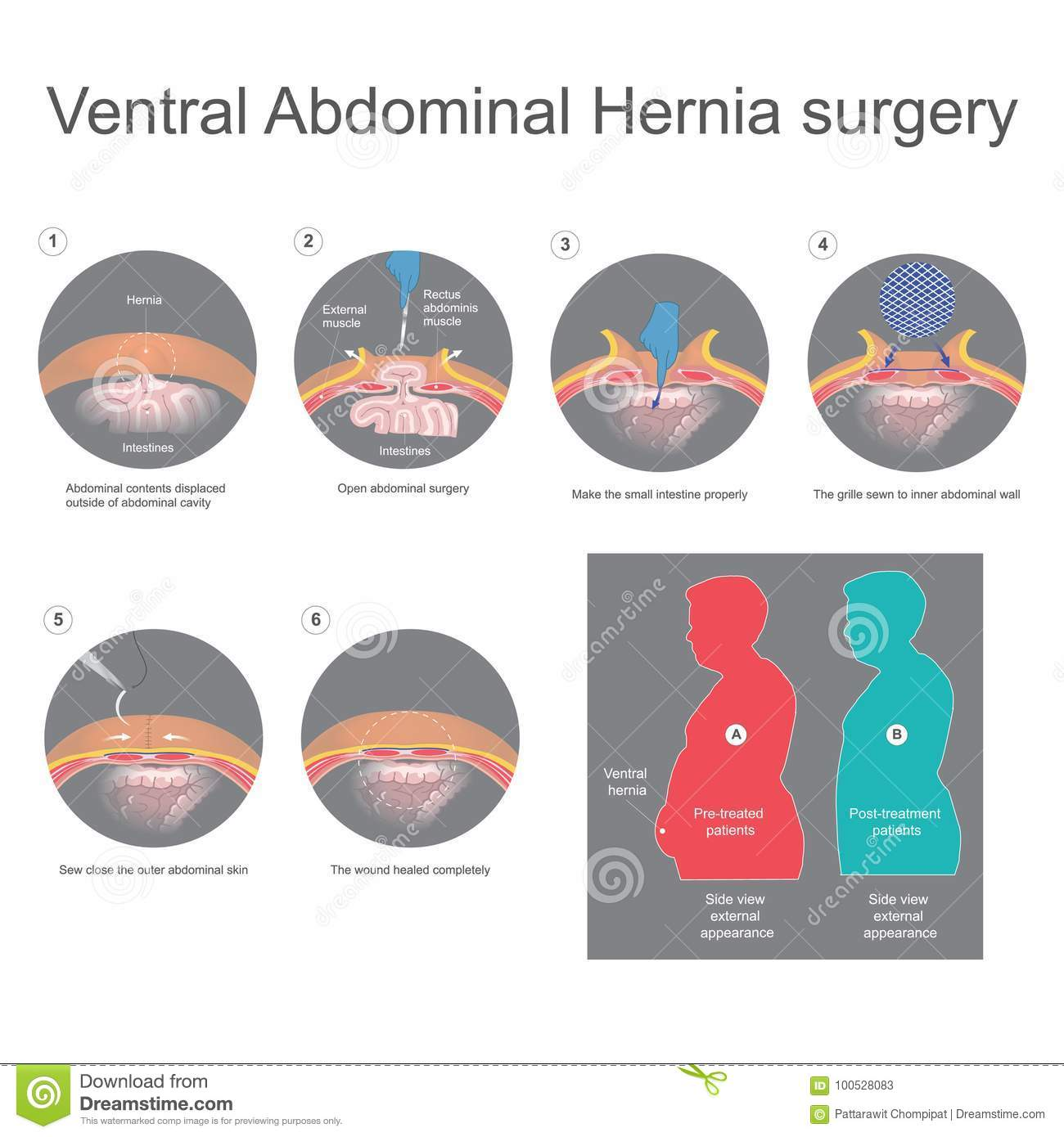 Ventral Hernia Is A Bulge Of Tissues Through An Opening Of