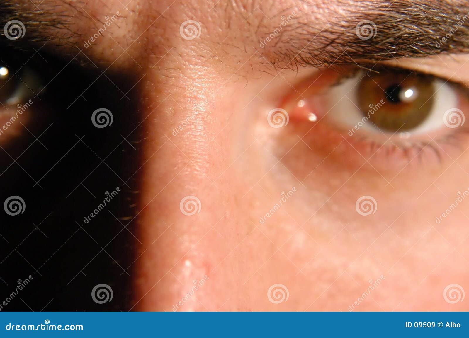 Verärgertes Auge