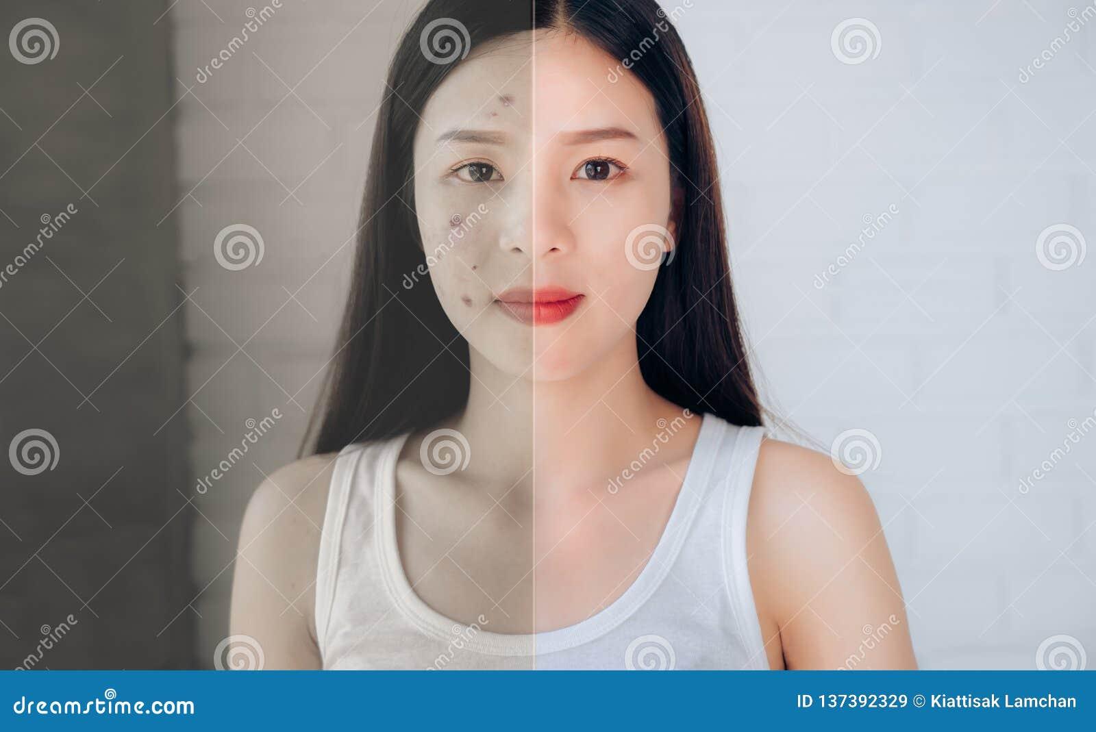 Vergelijking van het Aziatische Gezicht van de Vrouwenacne en na Schoon Gezicht