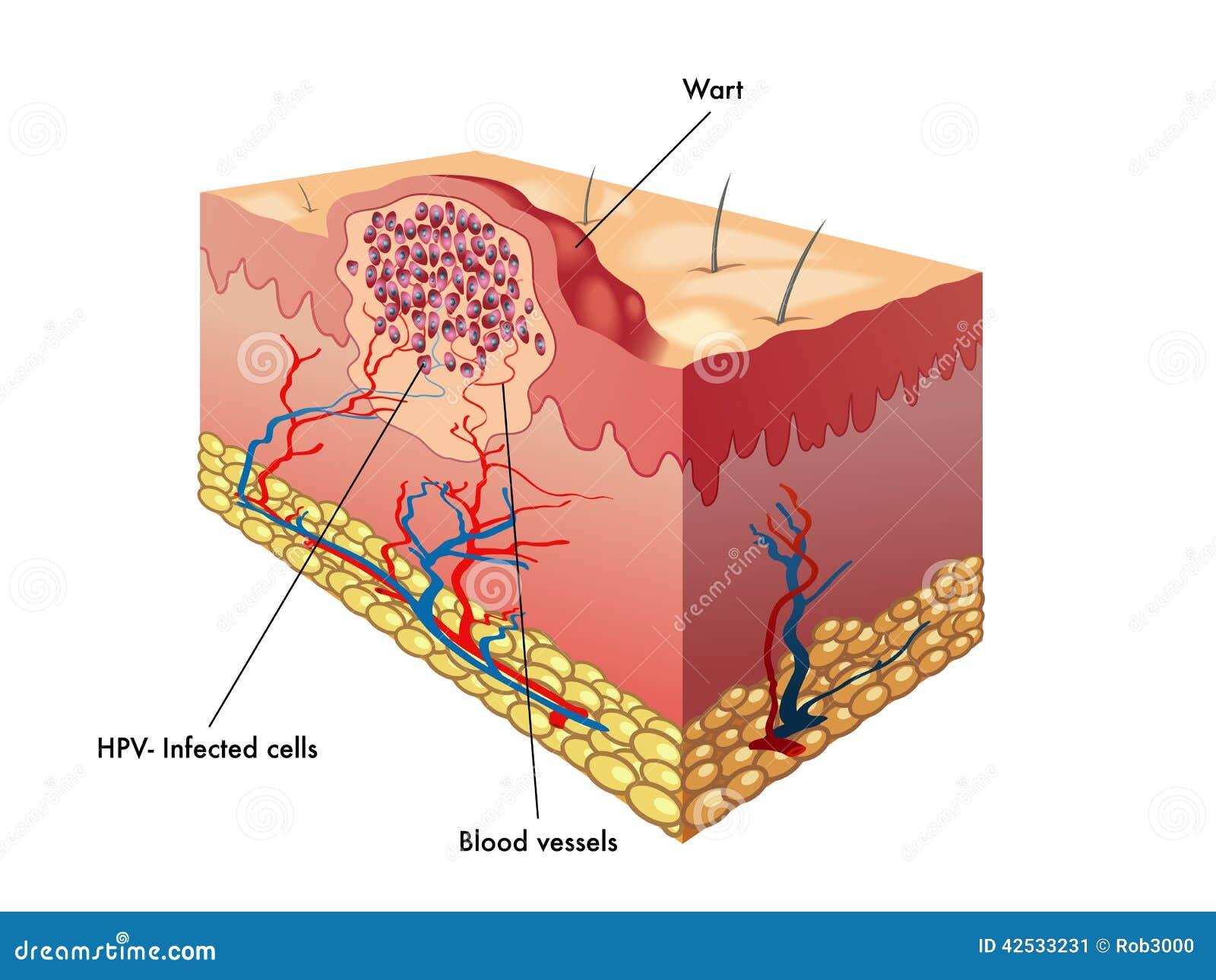 Anatomía de la verruga ilustración del vector. Ilustración de ...