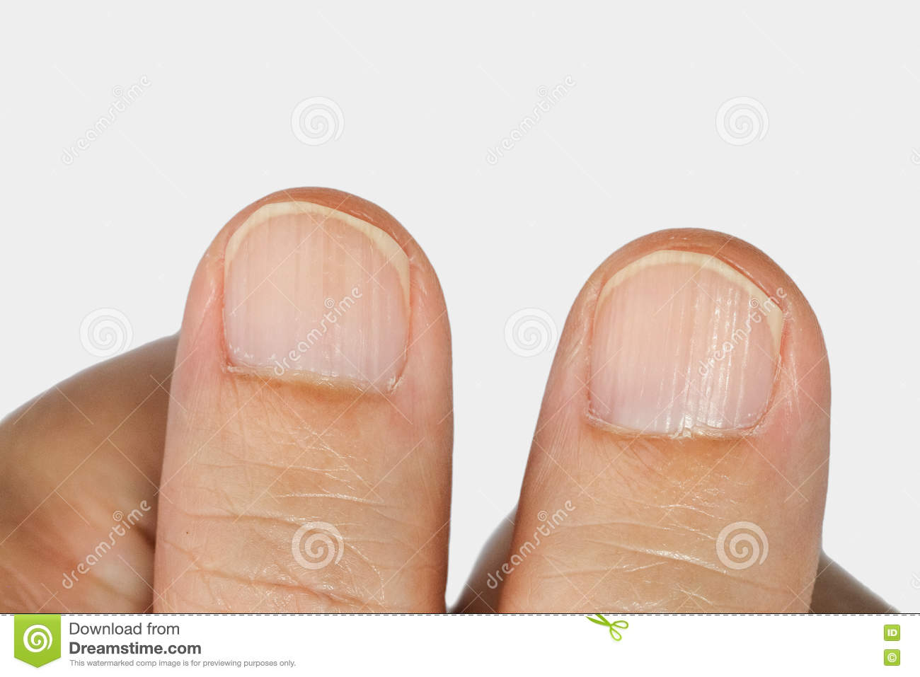 Vertical Ridges On The Fingernails Stock Image - Image of nutrition ...