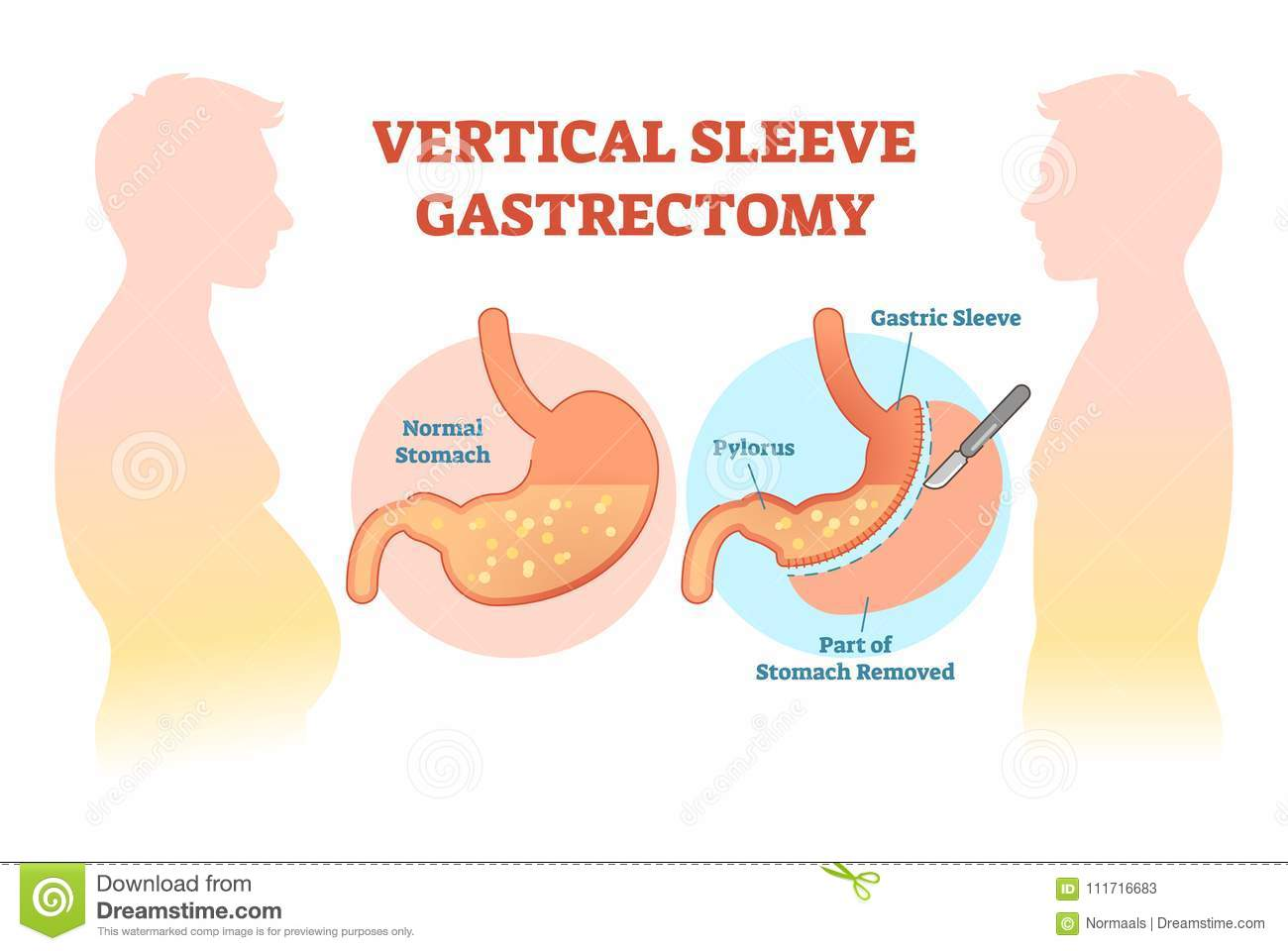 vertical sleeve gastrectomy medical vector illustration diagram with