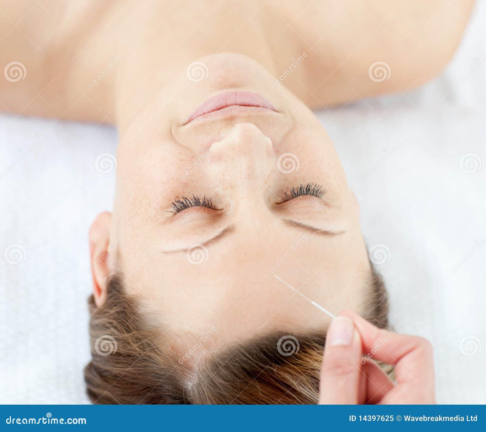 Verticale d une femme ayant une thérapie d acuponcture