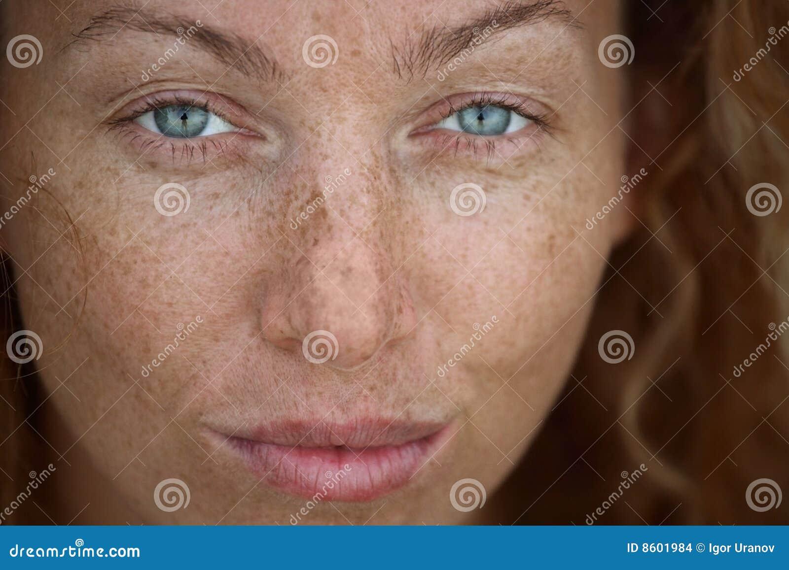 La soude pour léloignement des taches de pigment