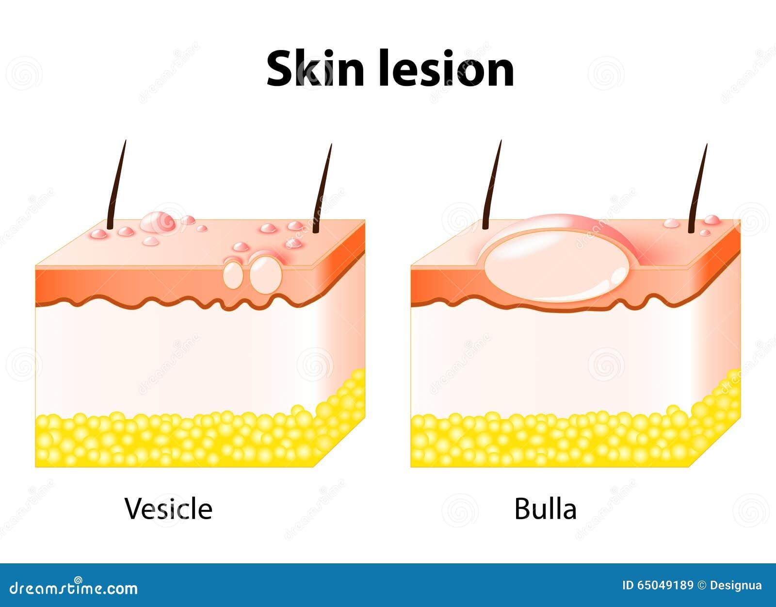 Vesicle And Bulla. Skin Lesion Stock Vector - Illustration ...