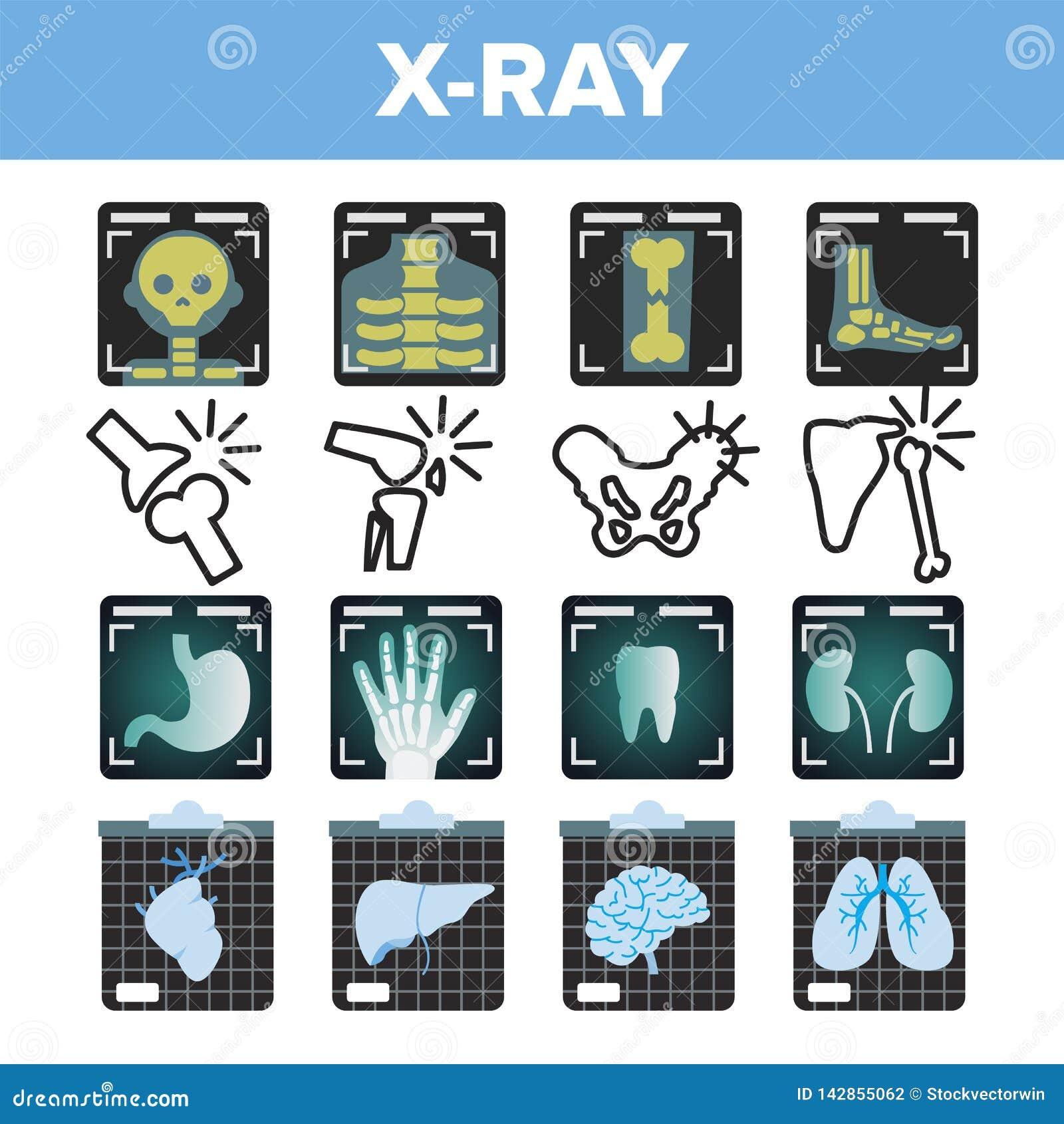 Vetor do grupo do ícone do raio X Varredura da radiologia Osso humano quebrado Símbolo médico Estrutura da fratura Medicina do ho