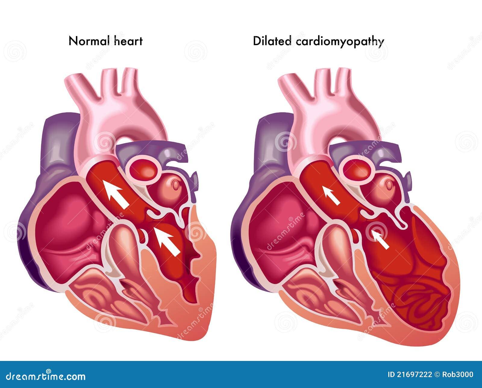 Vidgad cardiomyopathy