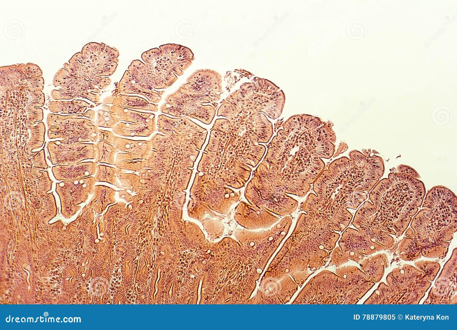 Villi Of Small Intestine Stock Image Image Of Micro 78879805