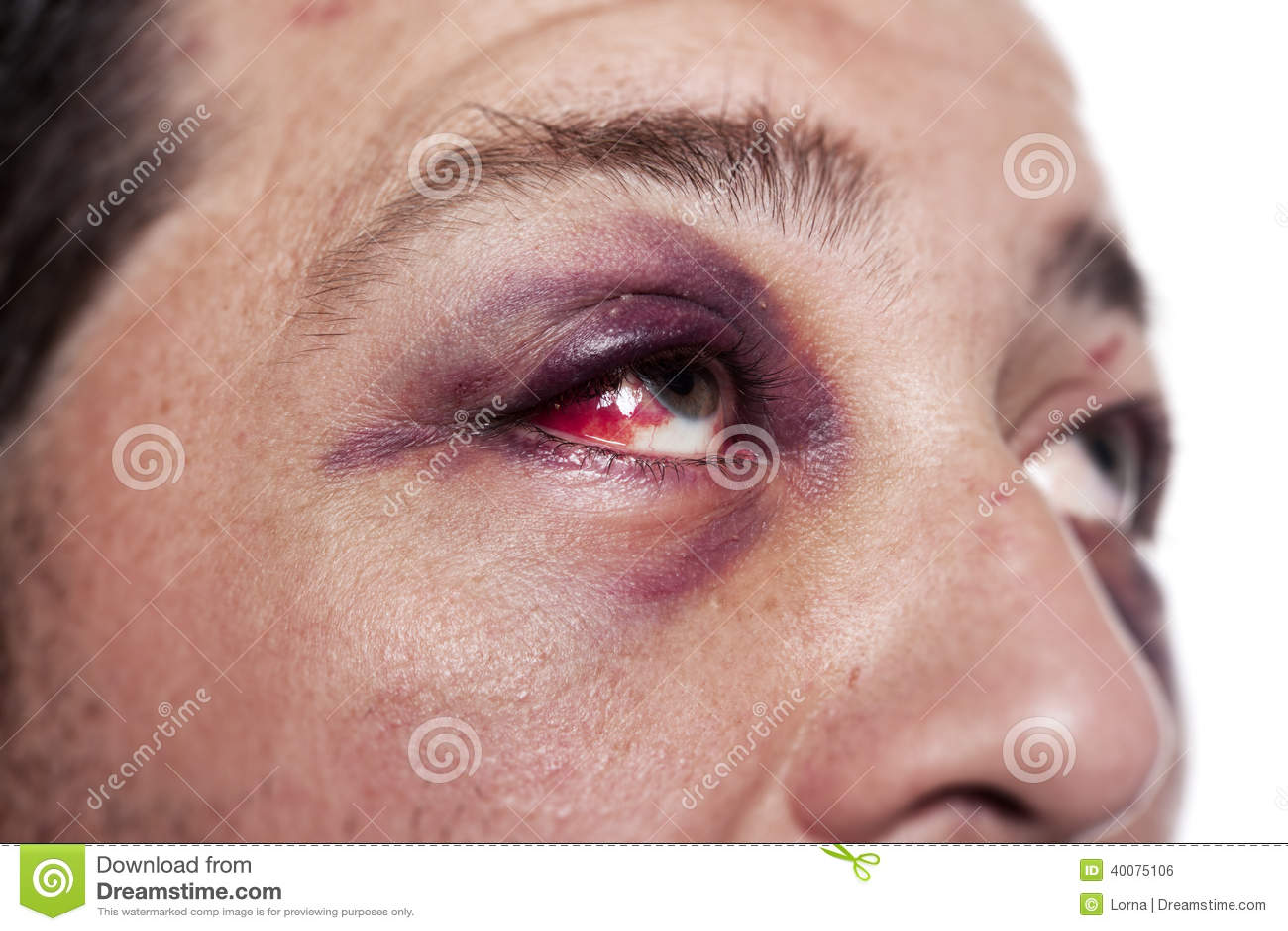 Comme clarifier les yeux battus bleus