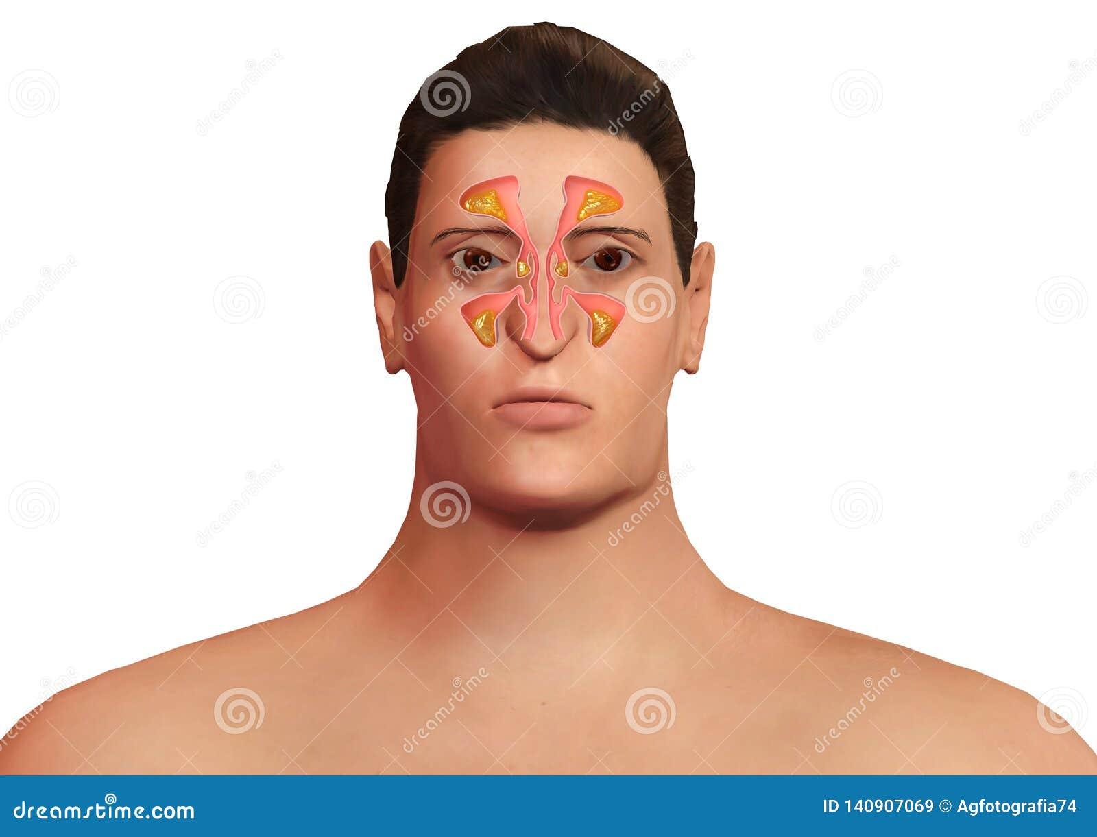 Visage de l homme avec les sinus nasaux enflammés avec la sinusite Malaise allergique de sinusite et de corps