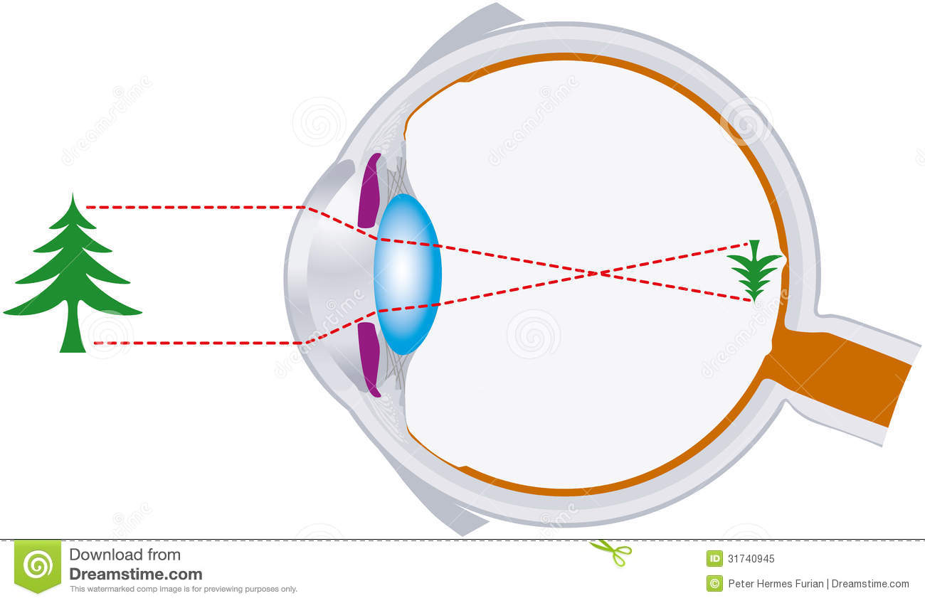 Rays of light are bundled by the lens in the human eye and are inverse ...