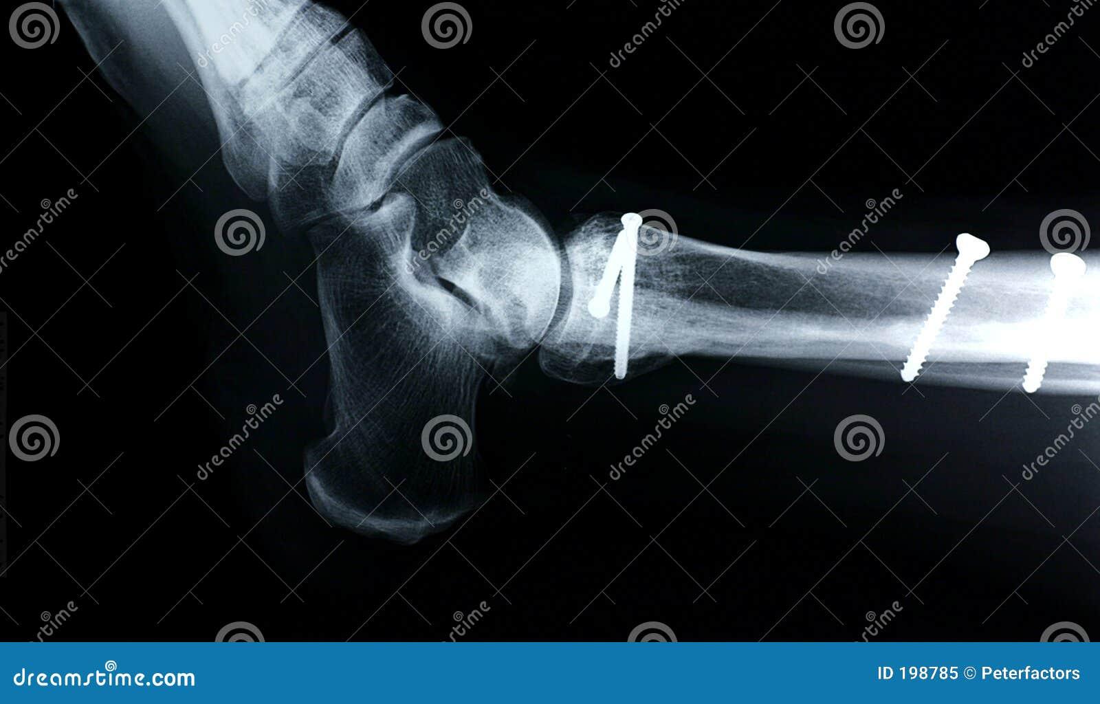 Vista Lateral De La Radiografía/del Tobillo Imagen de archivo ...