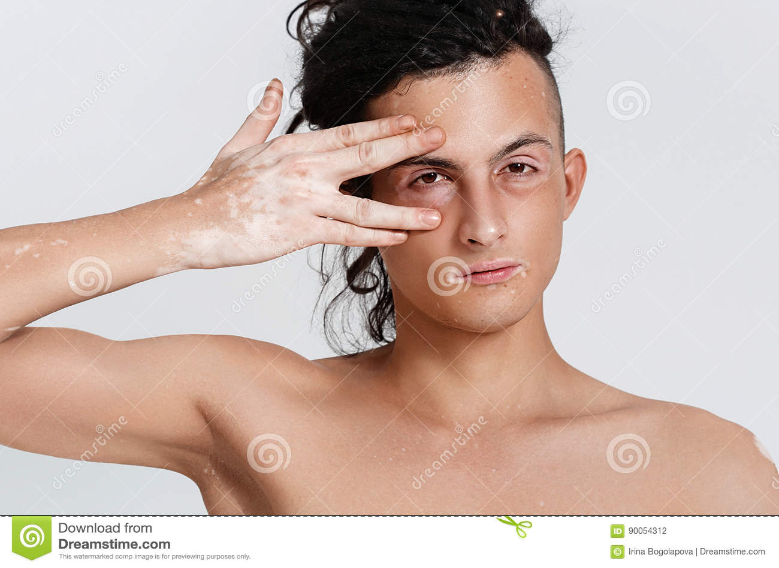 Vitiligo Man Portrait Stock Photo Image Of Body Looking 90054312