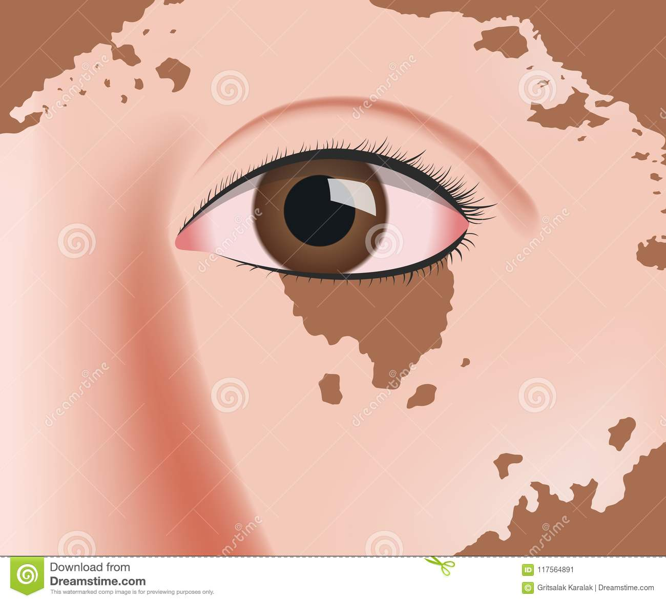 Vitiligo On Skin Layer Anatomy Stock Illustration - Illustration of ...