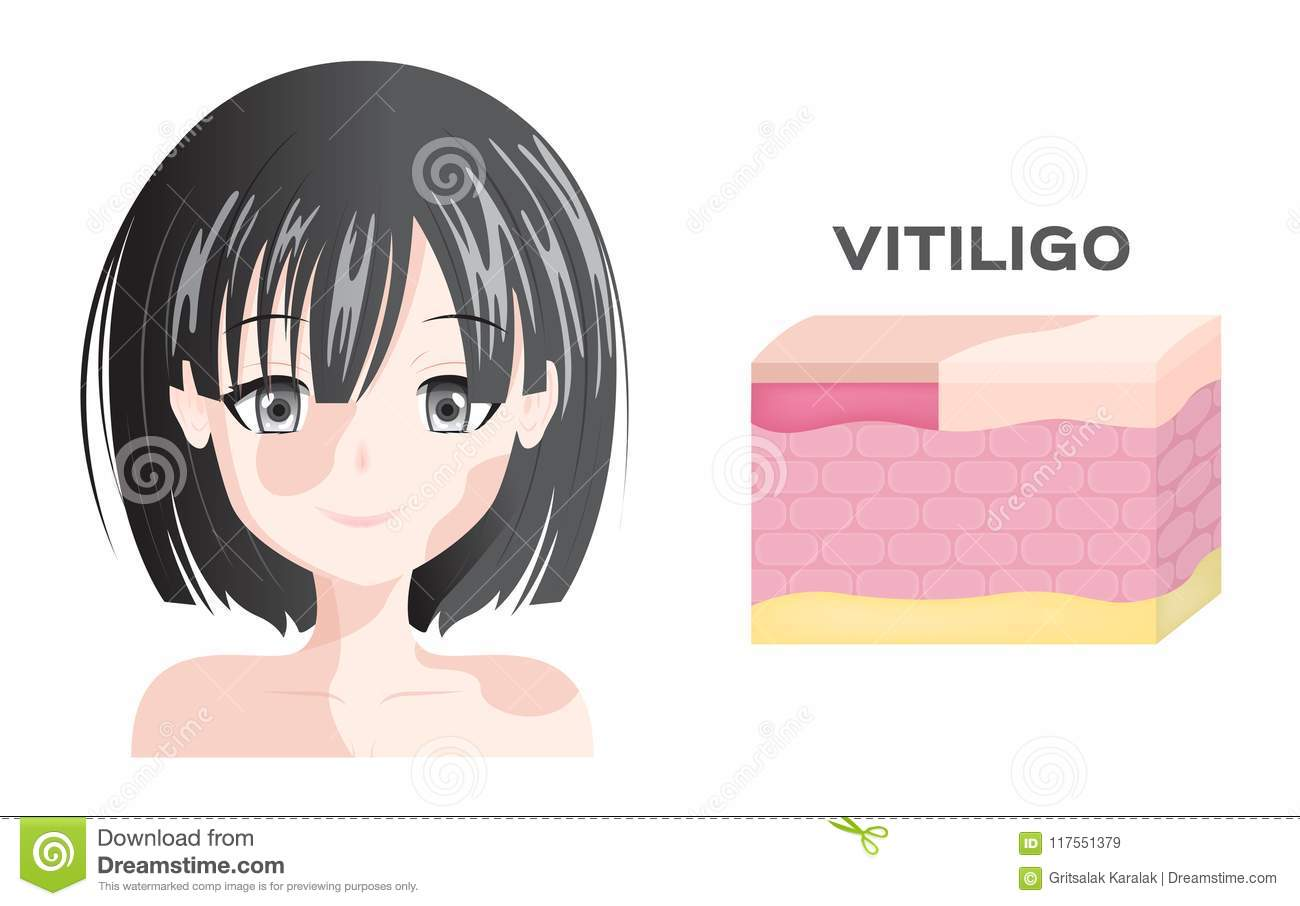 Vitiligo Women Face And Skin Layer Anatomy Stock Illustration ...