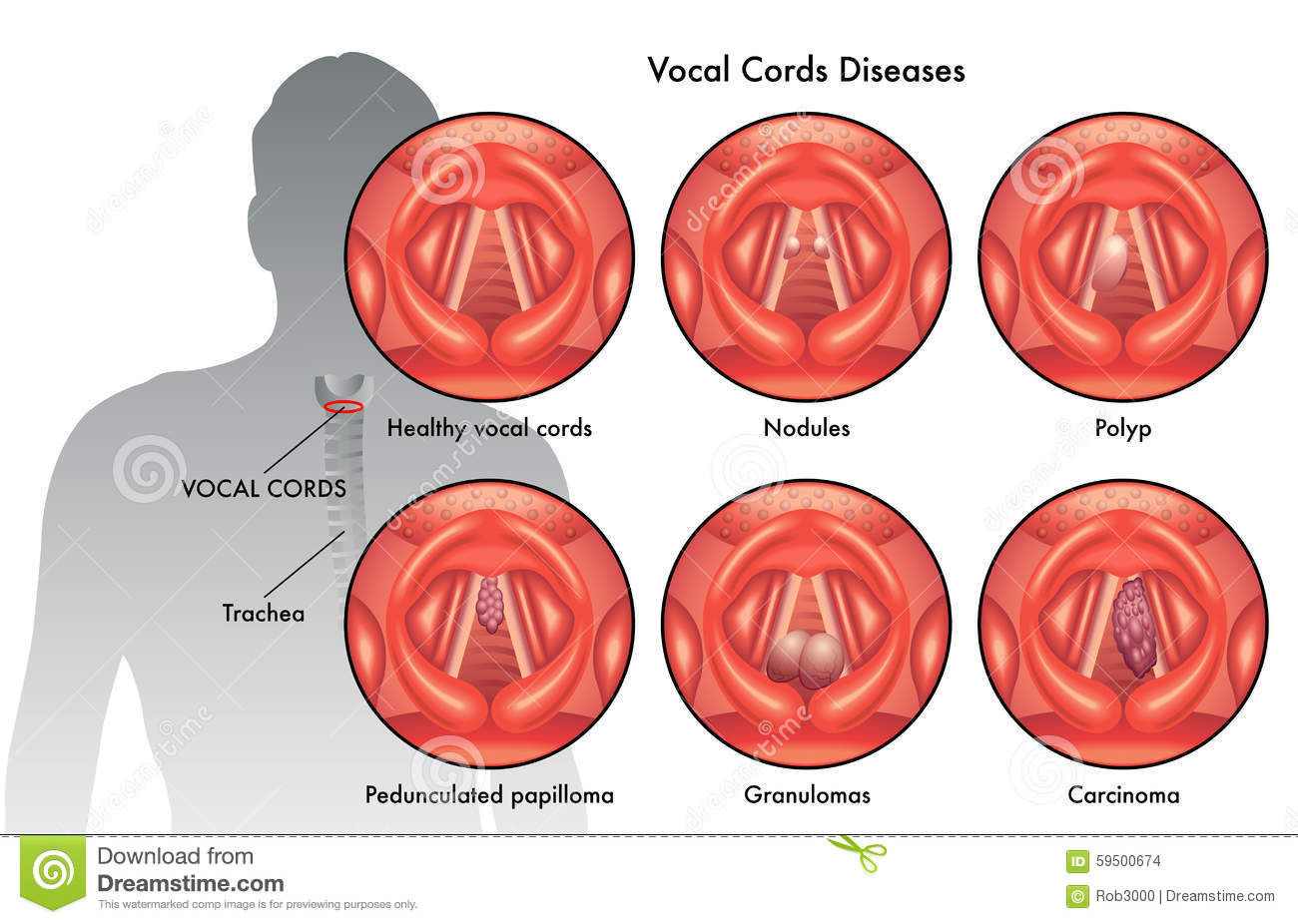 Vocal cord diseases stock vector. Illustration of inflamed - 59500674