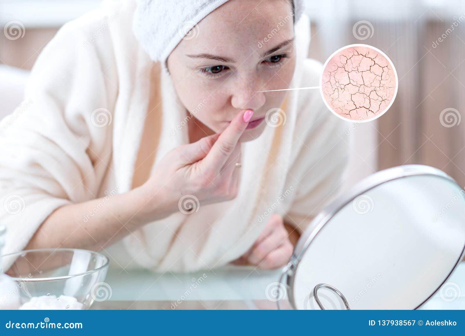 Vrouw die haar droge huid met barsten en met eerste rimpels bekijken De cirkels verhogen de huid als overdrijven meer magnifier