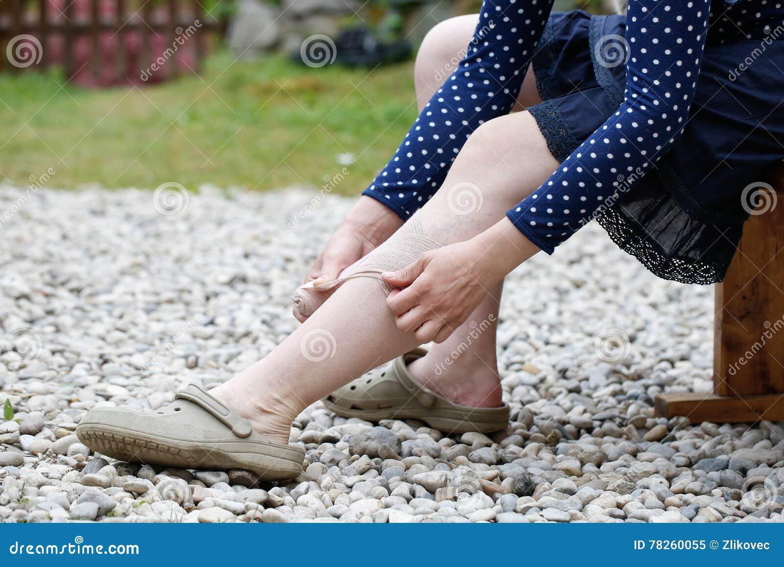 Vrouw die met spataders compressieverband toepassen