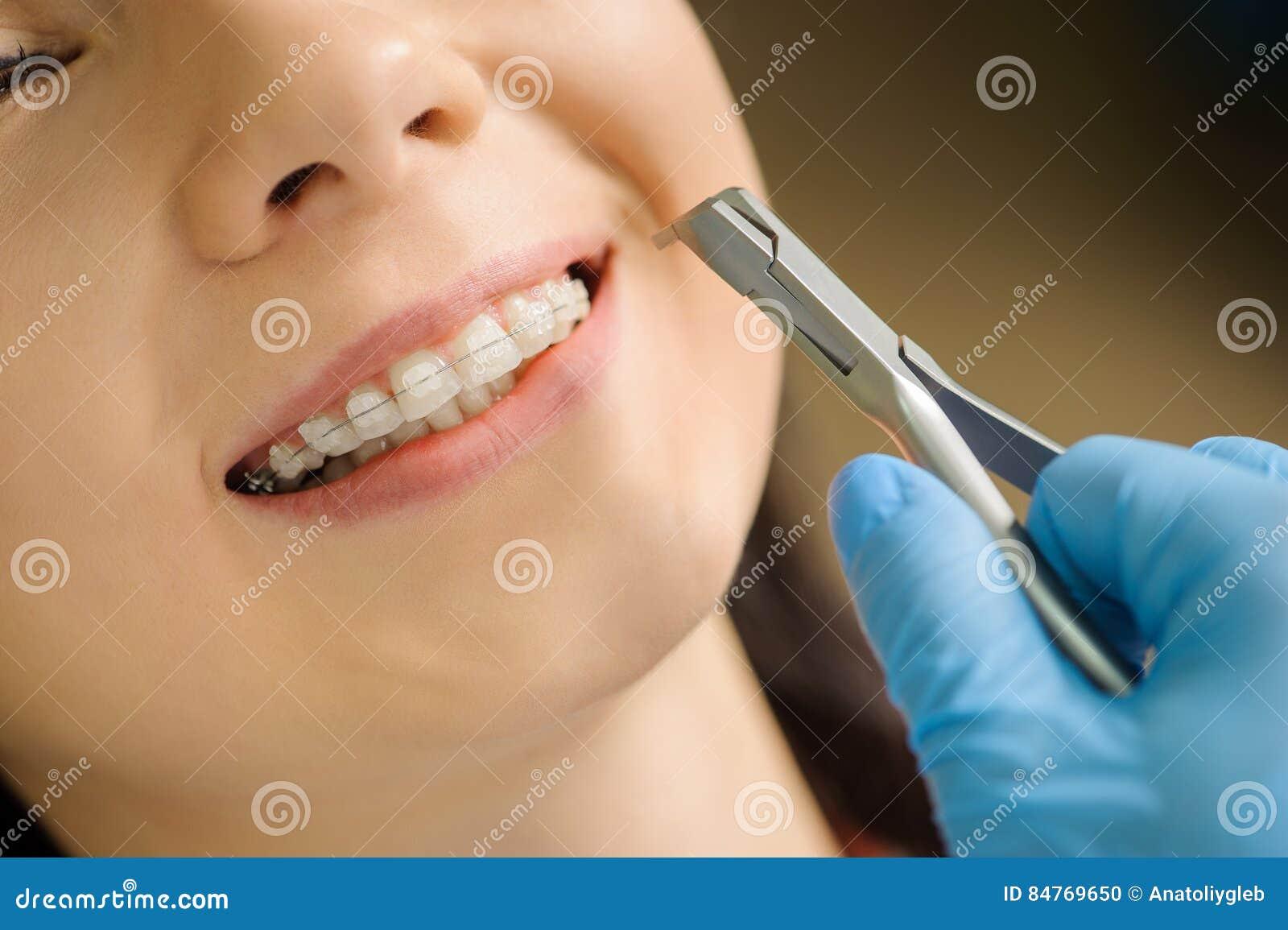 Vrouw met ceramische steunen op tanden op het tandkantoor