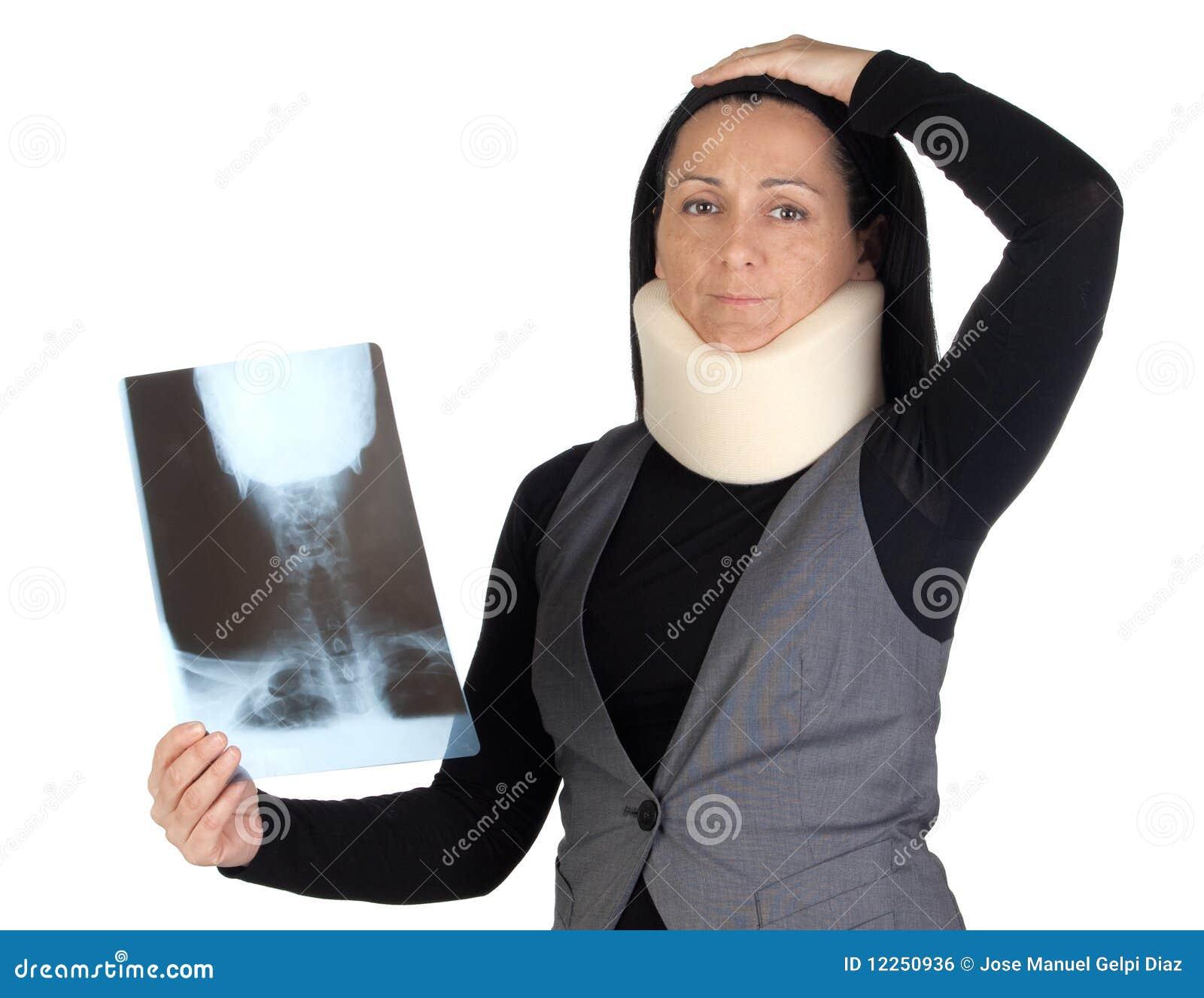 Vrouw met cervicale kraag en radiografie