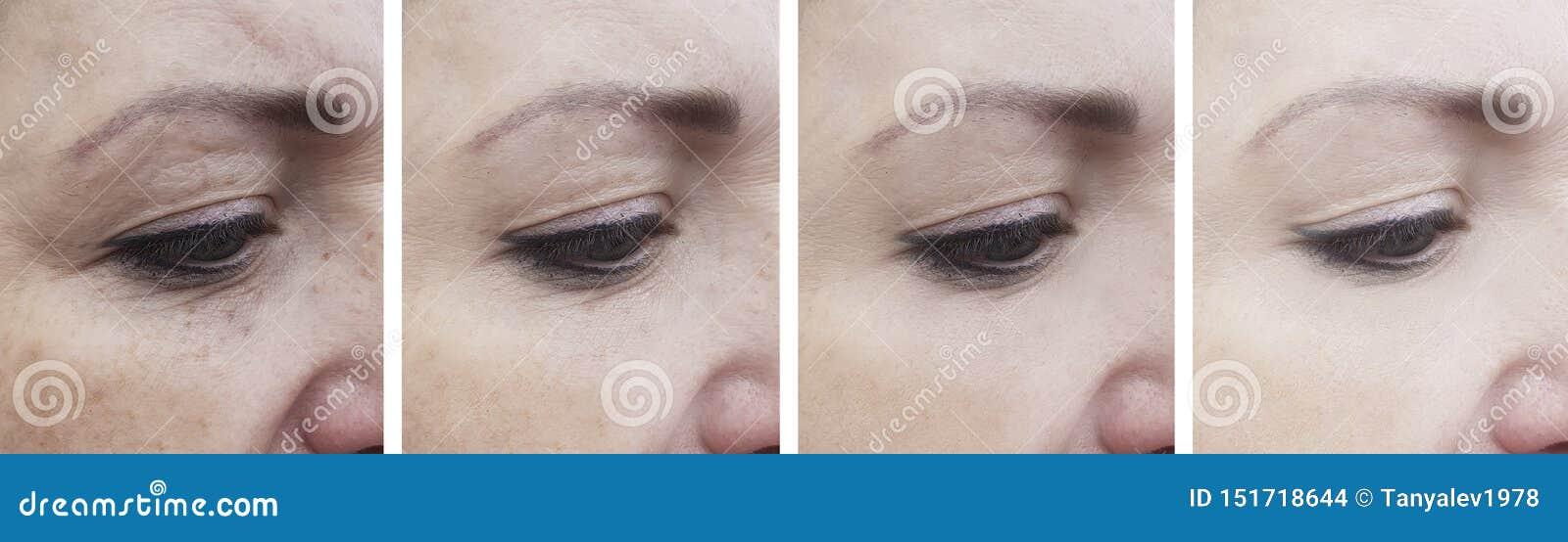 Vrouwenrimpels vóór effect verwijdering na de rijpe opheffende correctie van de behandelingscorrectie