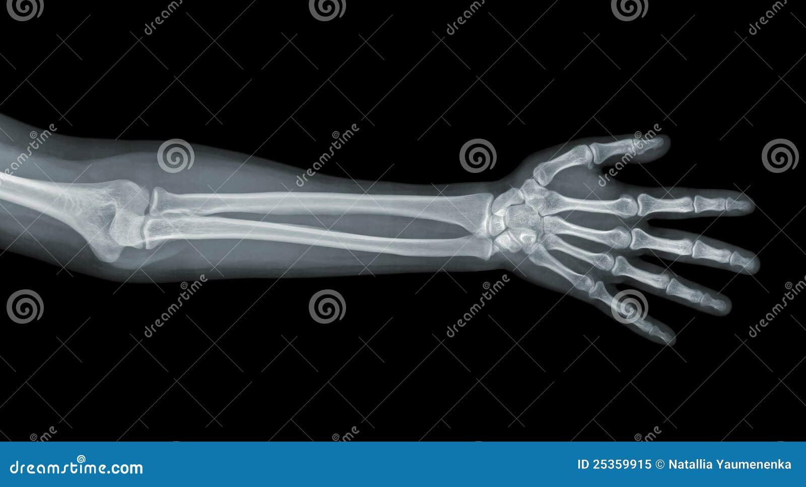 Vue de rayon X de main