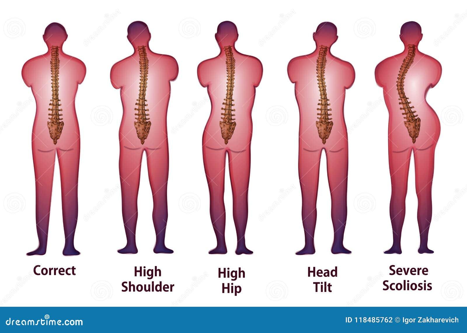 Vue humaine de dos de posture d épine